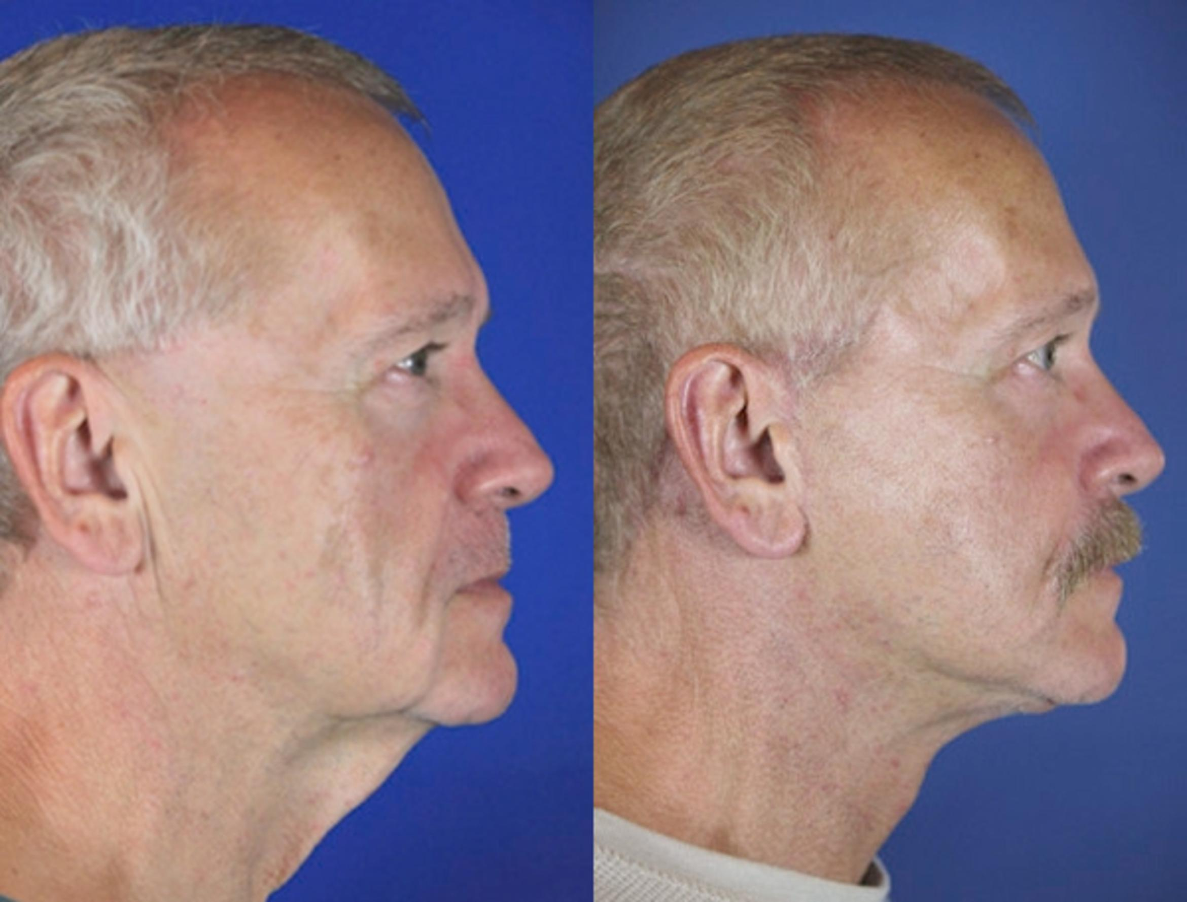 Facelift / Reflection Lift Case 62 Before & After Right Side | Brentwood, TN | Youthful Reflections