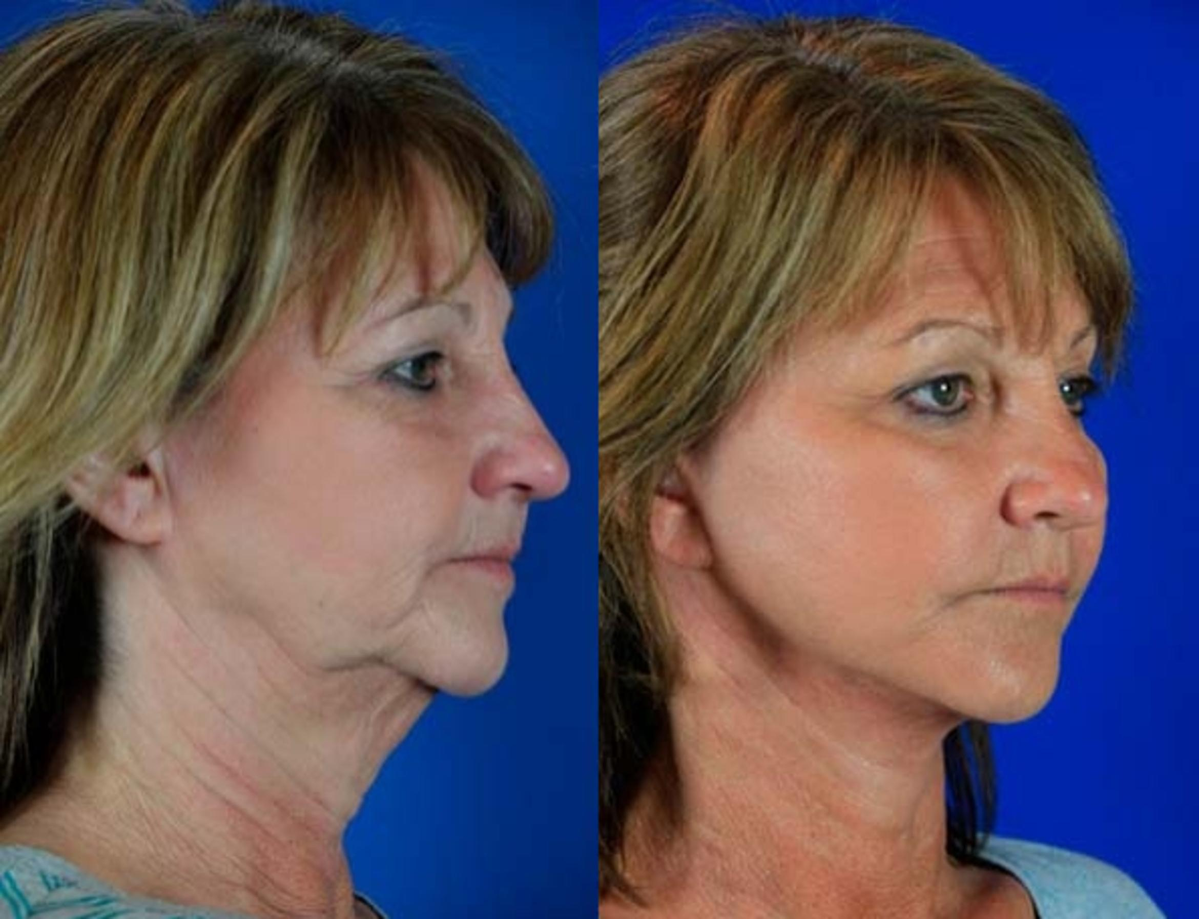 Facelift / Reflection Lift Case 63 Before & After Right Oblique | Nashville, TN | Youthful Reflections