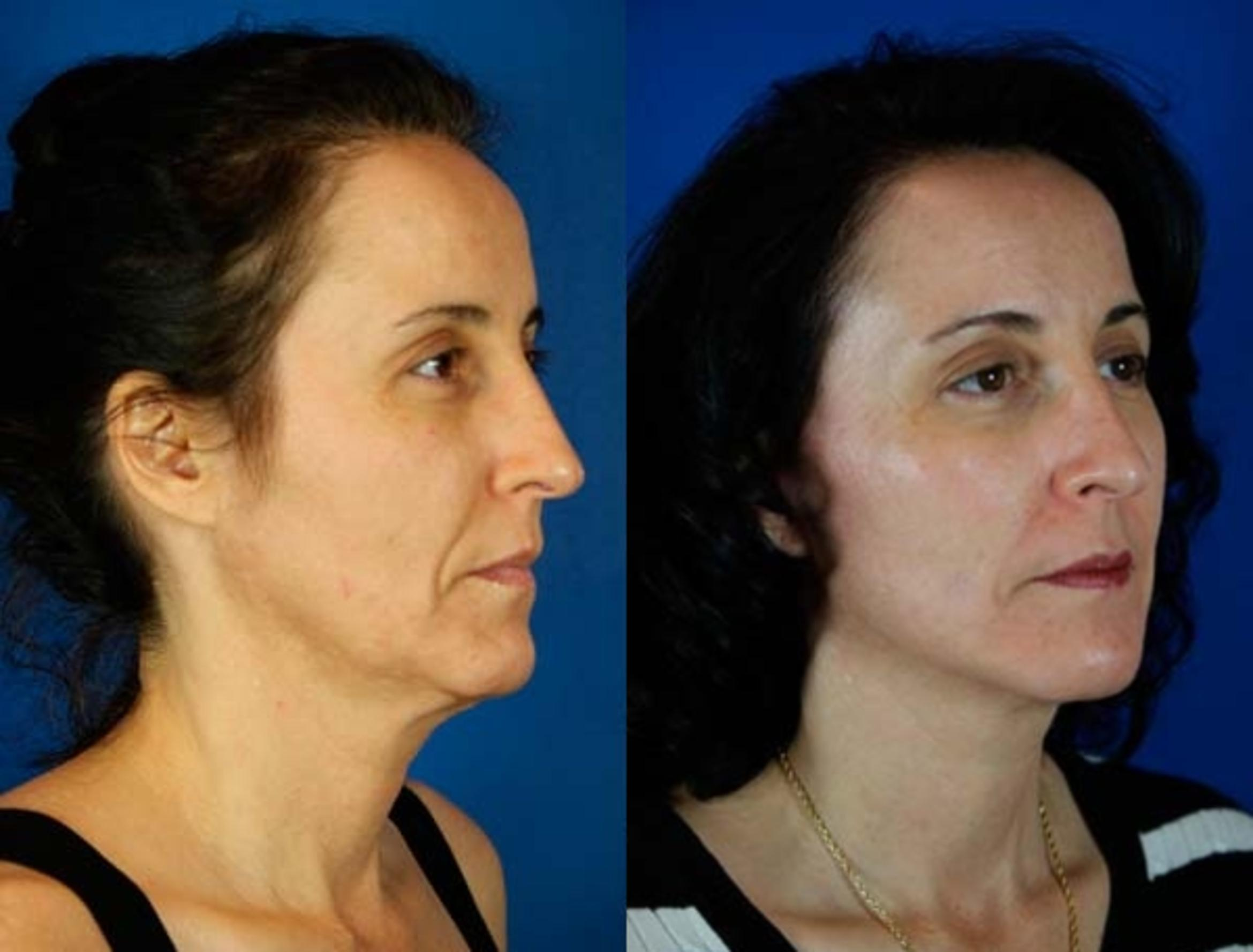 Facelift / Reflection Lift Case 65 Before & After Right Oblique | Brentwood, TN | Youthful Reflections