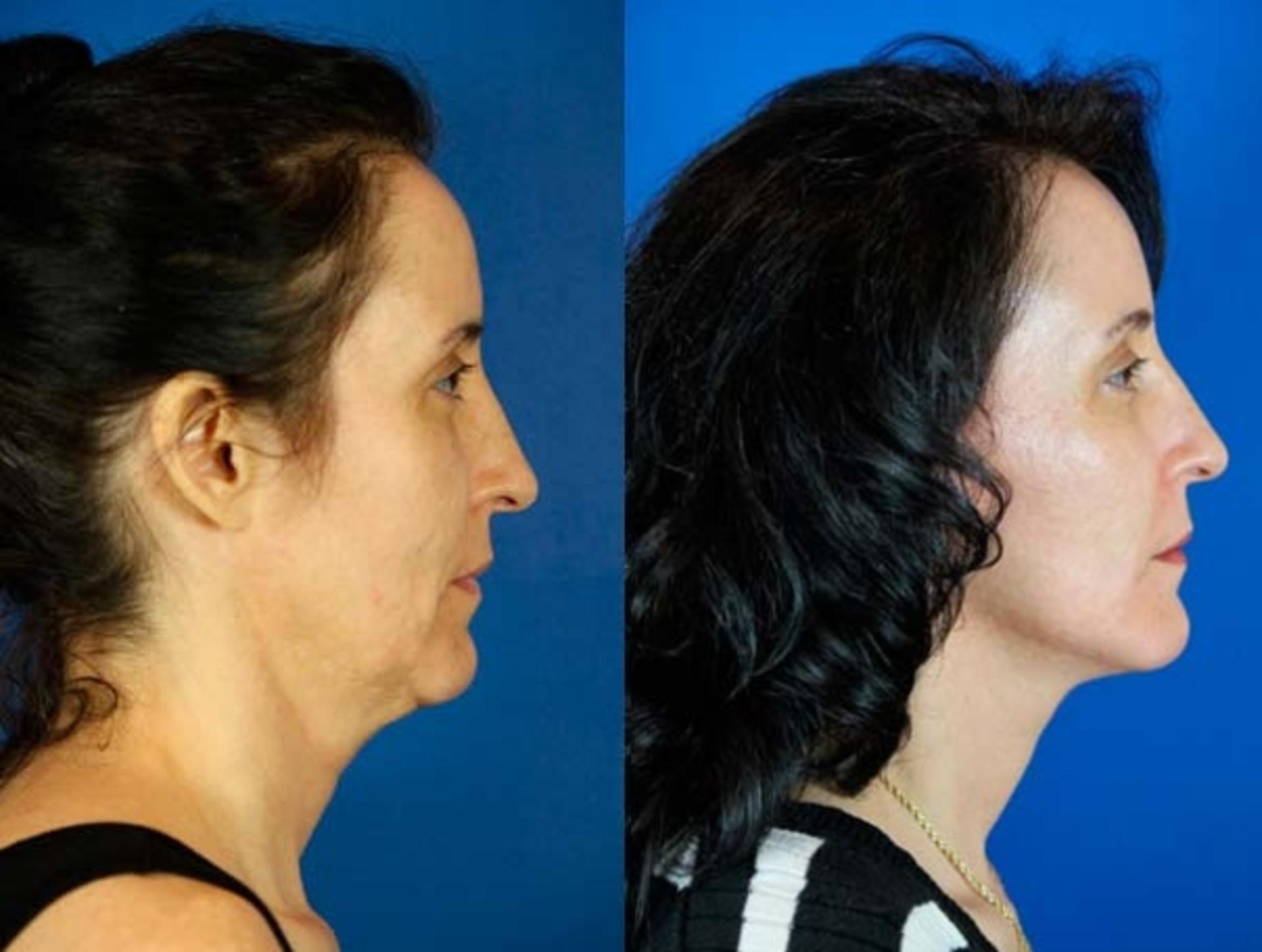 Facelift / Reflection Lift Case 65 Before & After Right Side | Brentwood, TN | Youthful Reflections