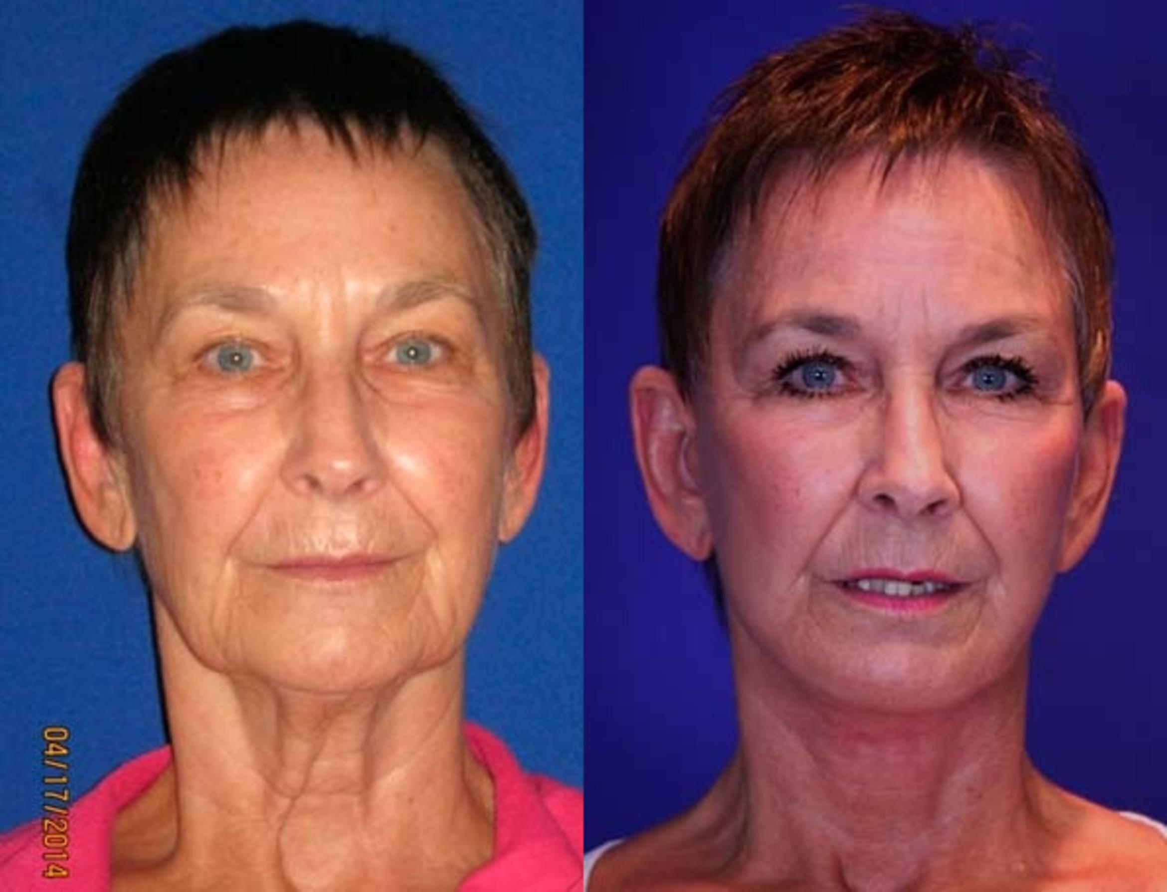 Facelift / Reflection Lift Case 67 Before & After Front | Brentwood, TN | Youthful Reflections