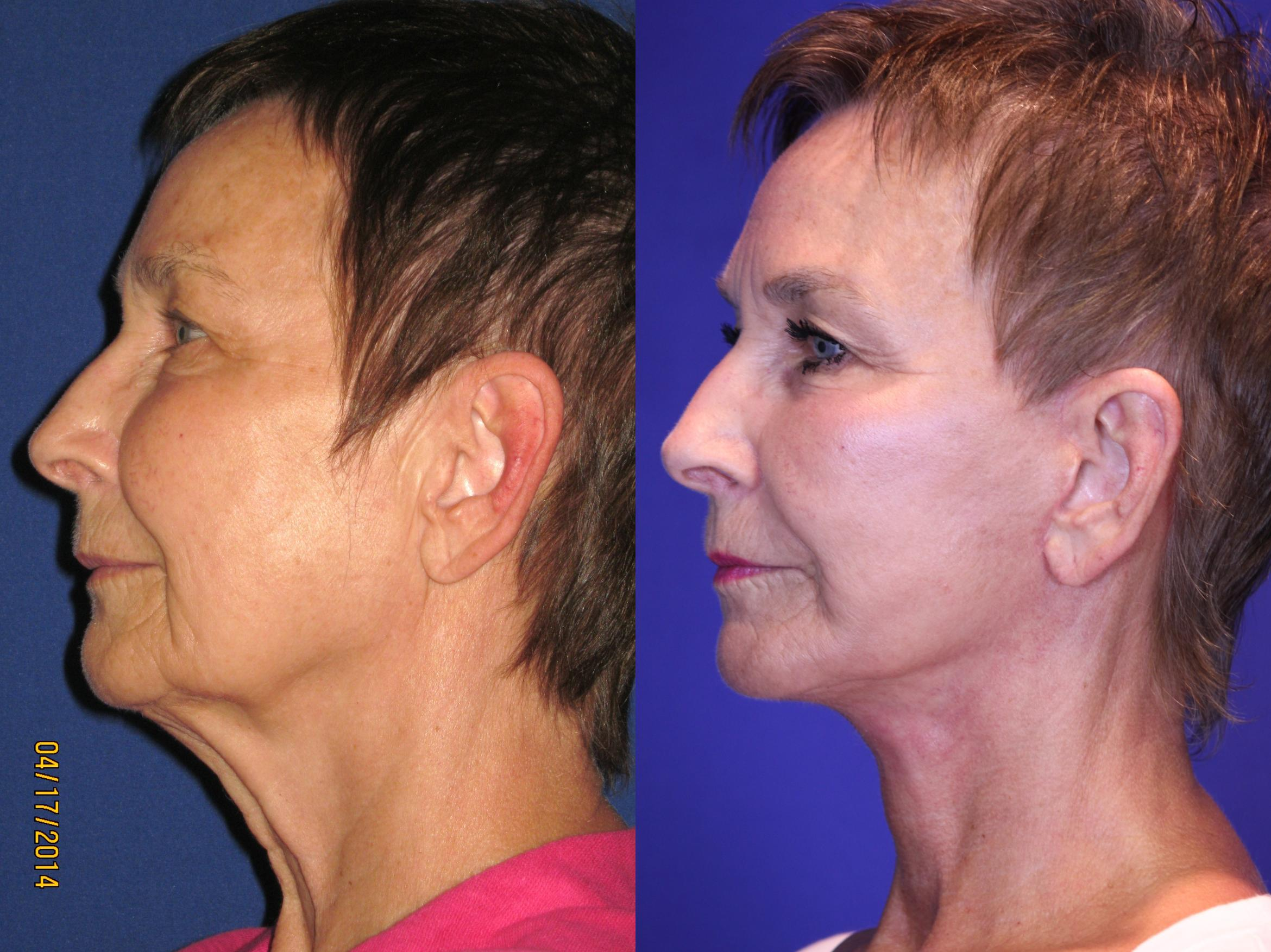 Facelift / Reflection Lift Case 67 Before & After Left Side | Brentwood, TN | Youthful Reflections