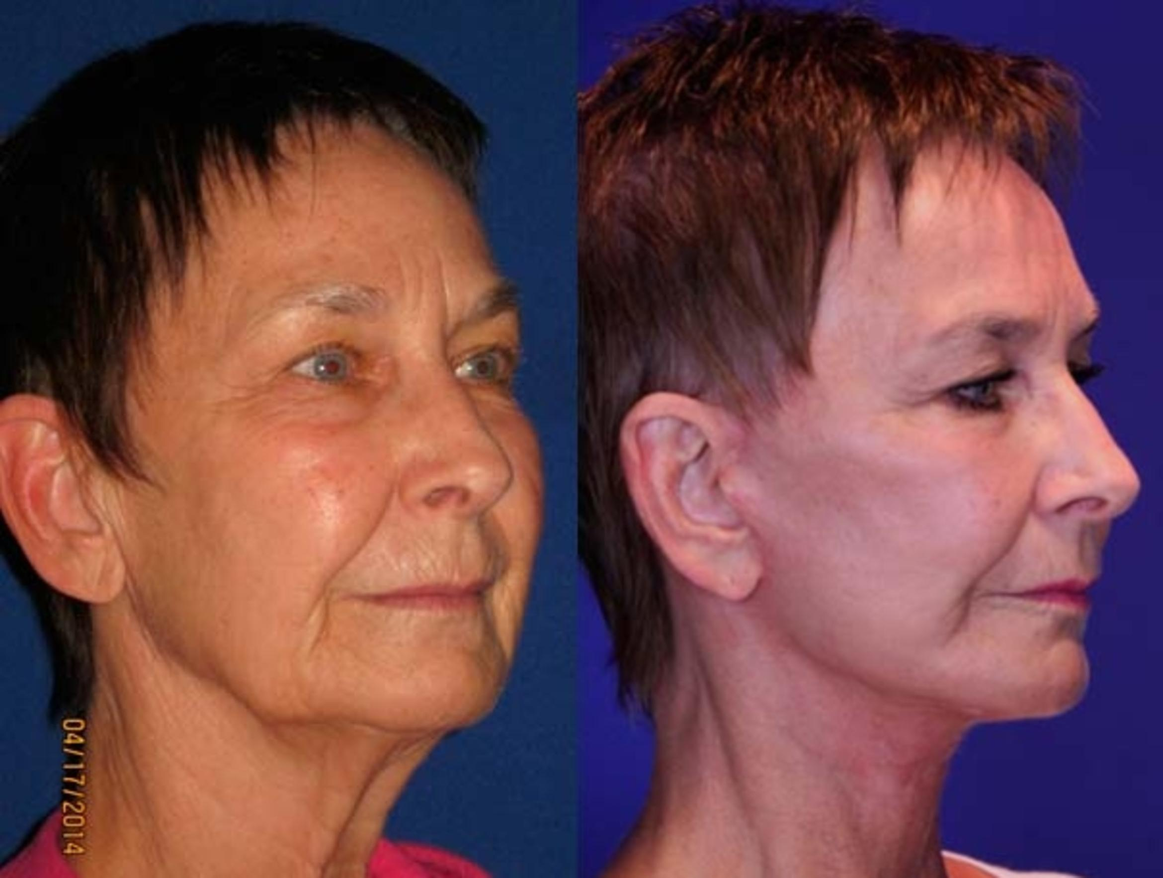 Facelift / Reflection Lift Case 67 Before & After Right Oblique | Brentwood, TN | Youthful Reflections