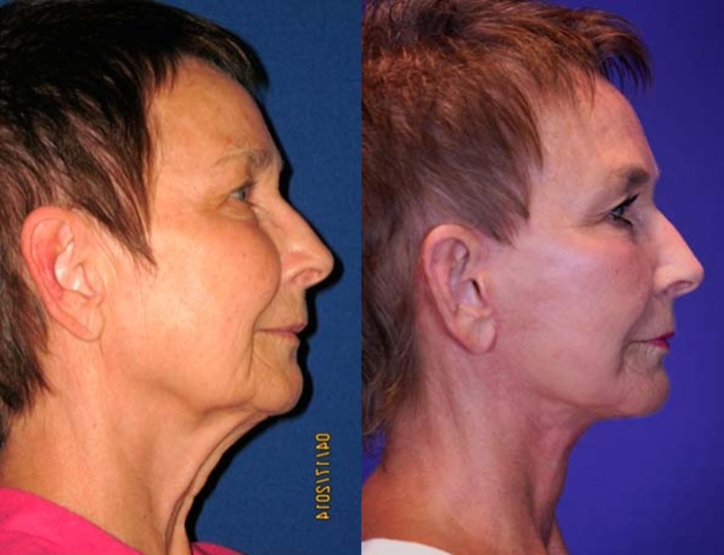 Facelift / Reflection Lift Case 67 Before & After Right Side | Brentwood, TN | Youthful Reflections