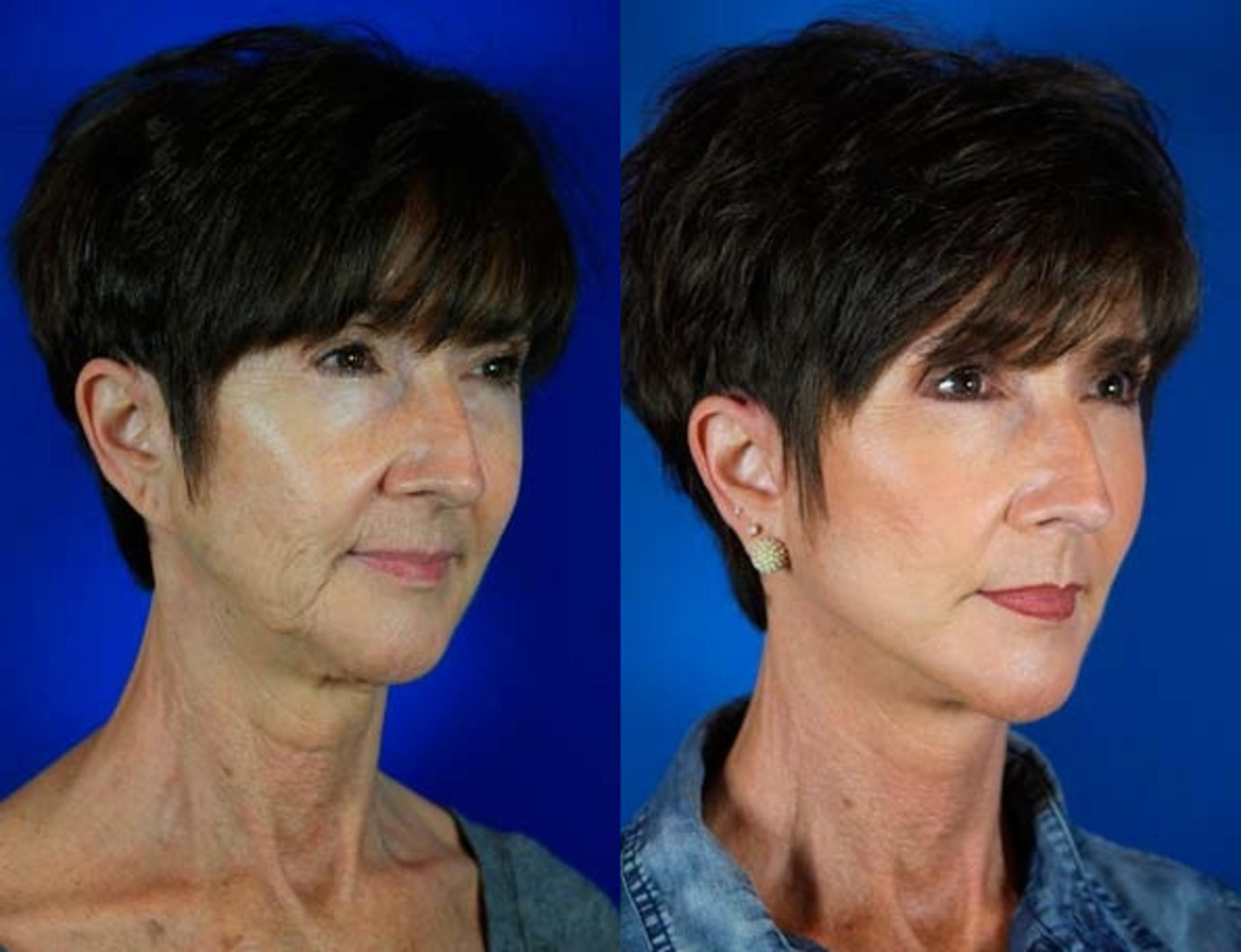 Facelift / Reflection Lift Case 68 Before & After Right Oblique | Nashville, TN | Youthful Reflections