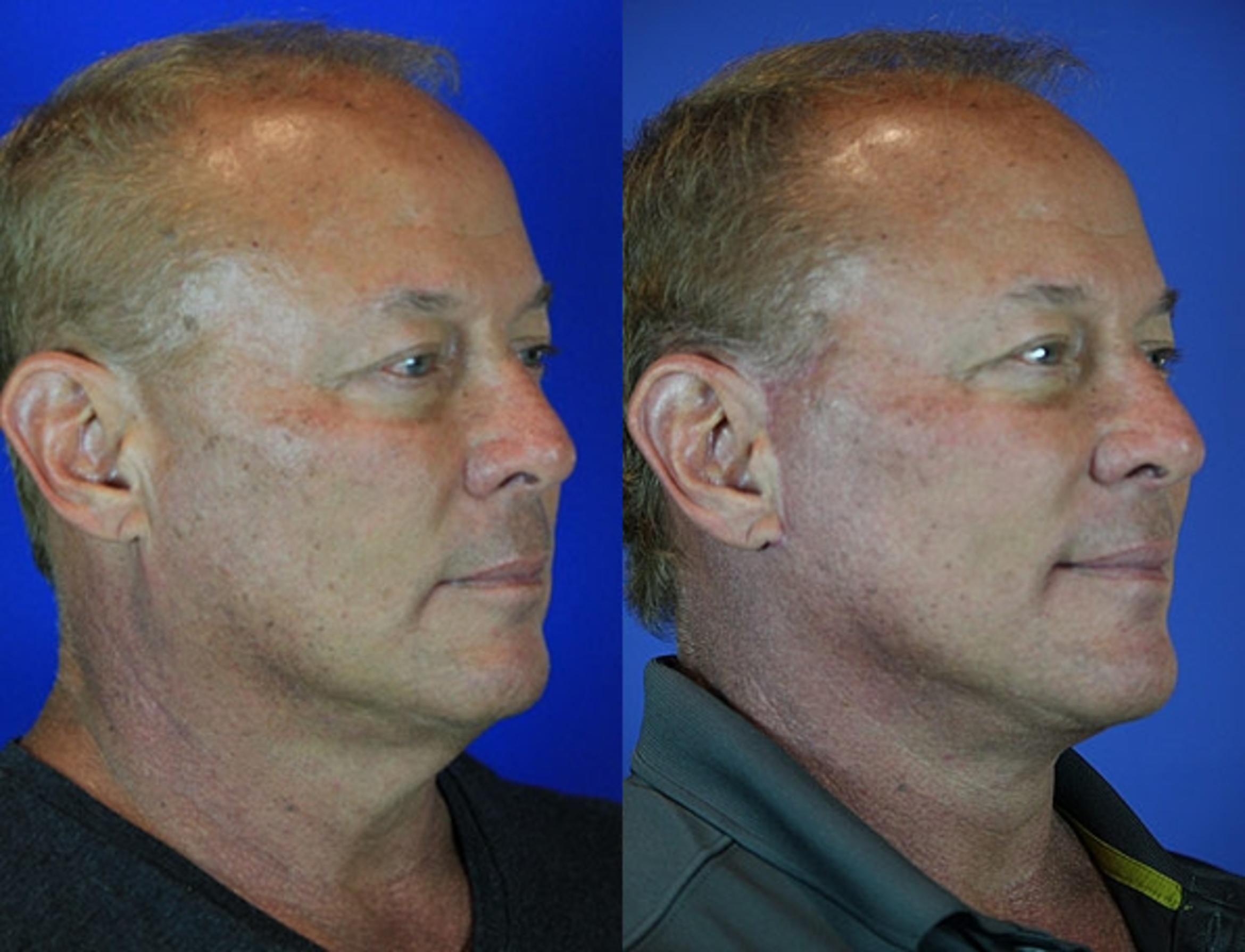 Facelift / Reflection Lift Case 69 Before & After Right Oblique | Brentwood, TN | Youthful Reflections