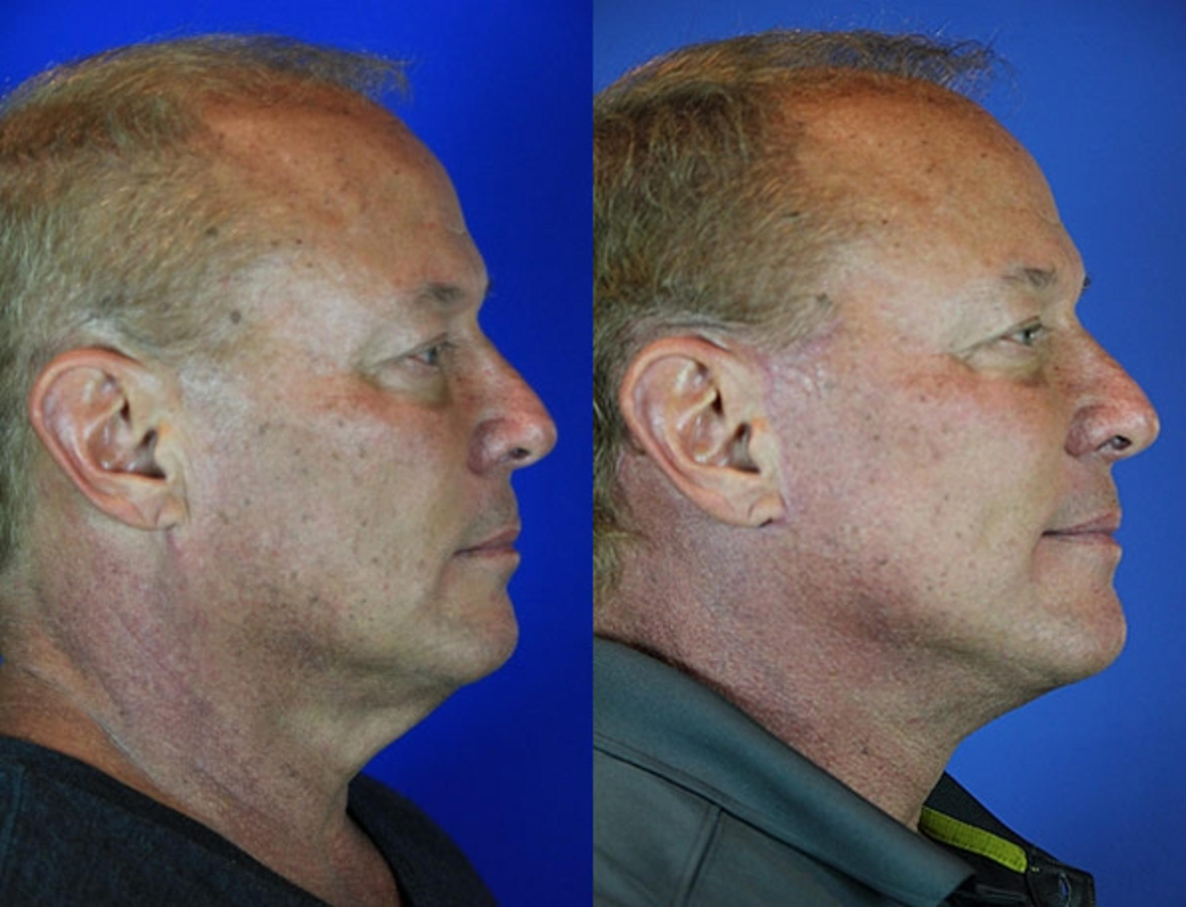 Facelift / Reflection Lift Case 69 Before & After Right Side | Brentwood, TN | Youthful Reflections