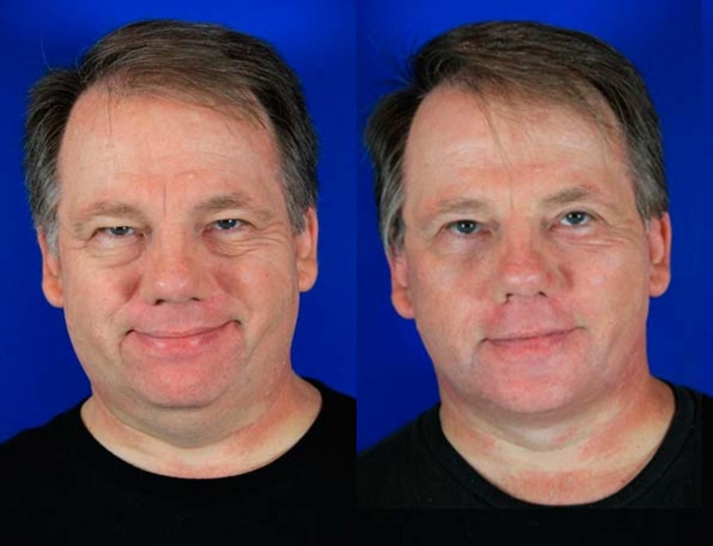 Facelift / Reflection Lift Case 71 Before & After Front | Brentwood, TN | Youthful Reflections