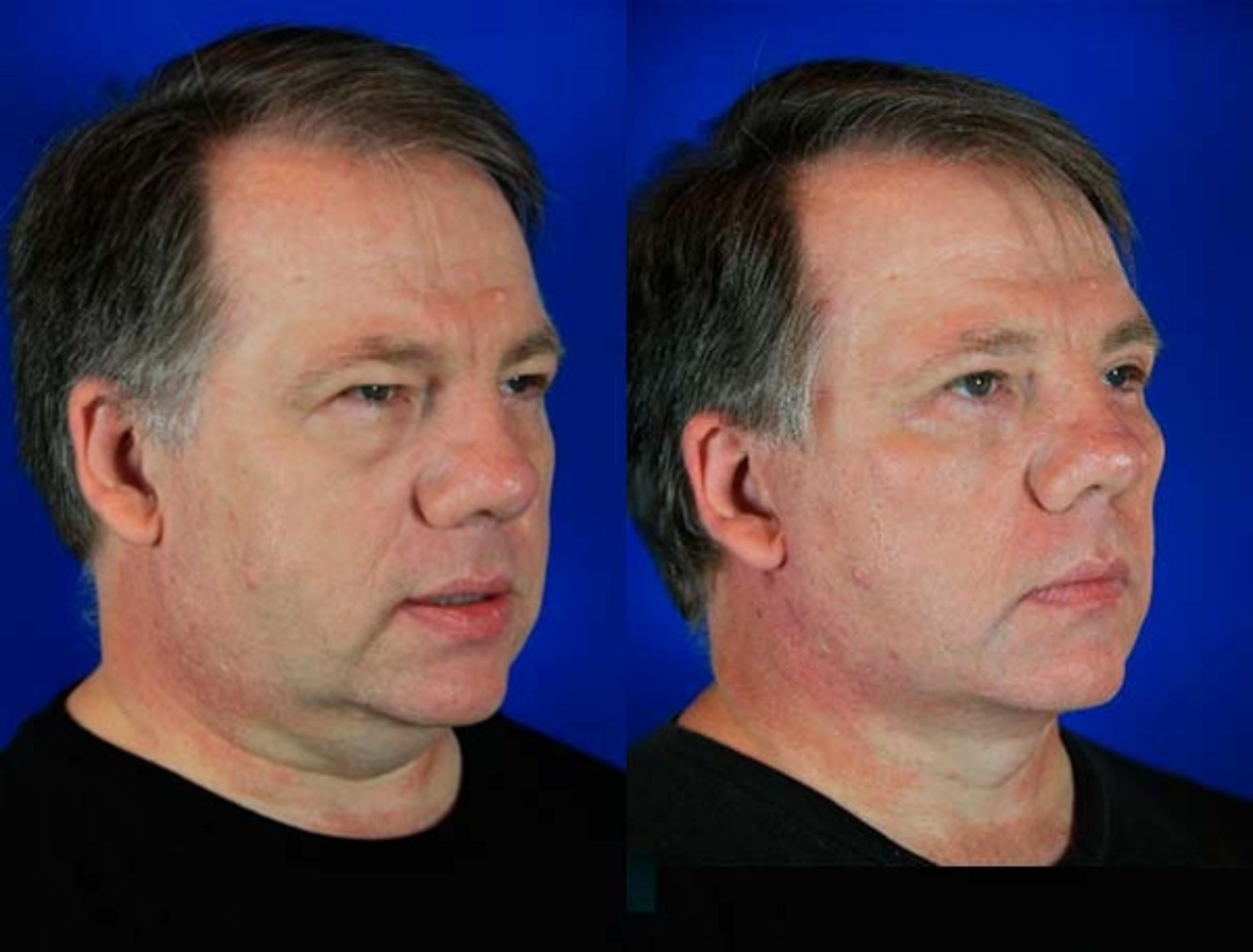 Facelift / Reflection Lift Case 71 Before & After Right Oblique | Brentwood, TN | Youthful Reflections