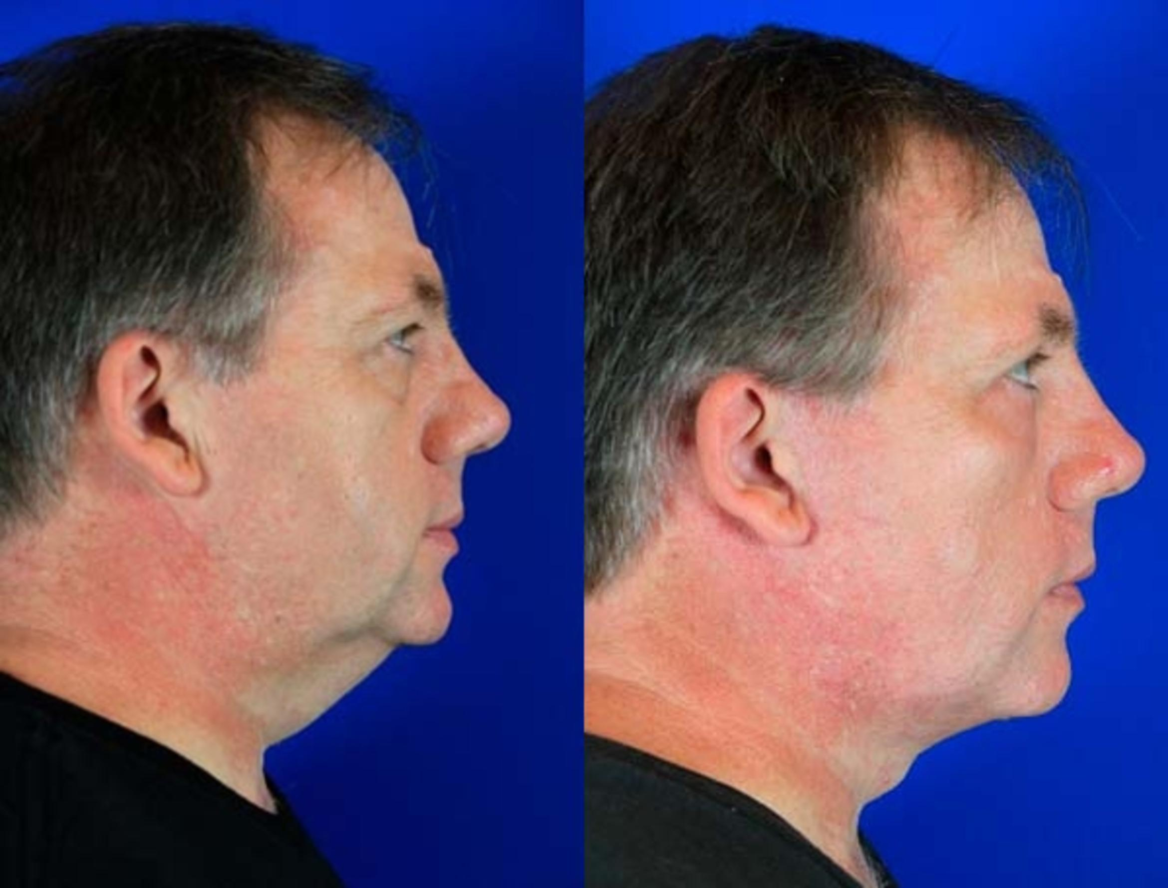 Facelift / Reflection Lift Case 71 Before & After Right Side | Brentwood, TN | Youthful Reflections