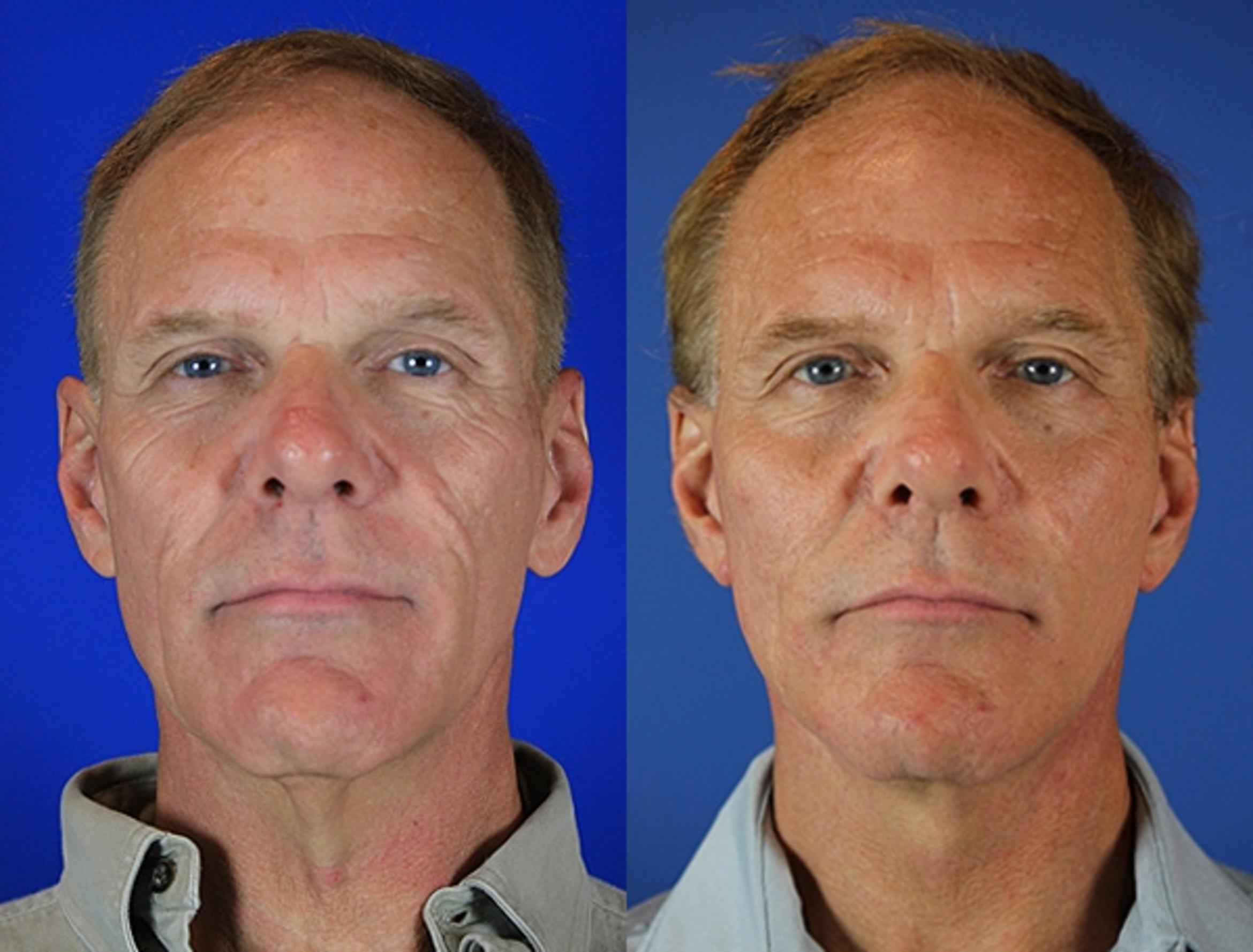 Facelift / Reflection Lift Case 72 Before & After Front | Nashville, TN | Youthful Reflections