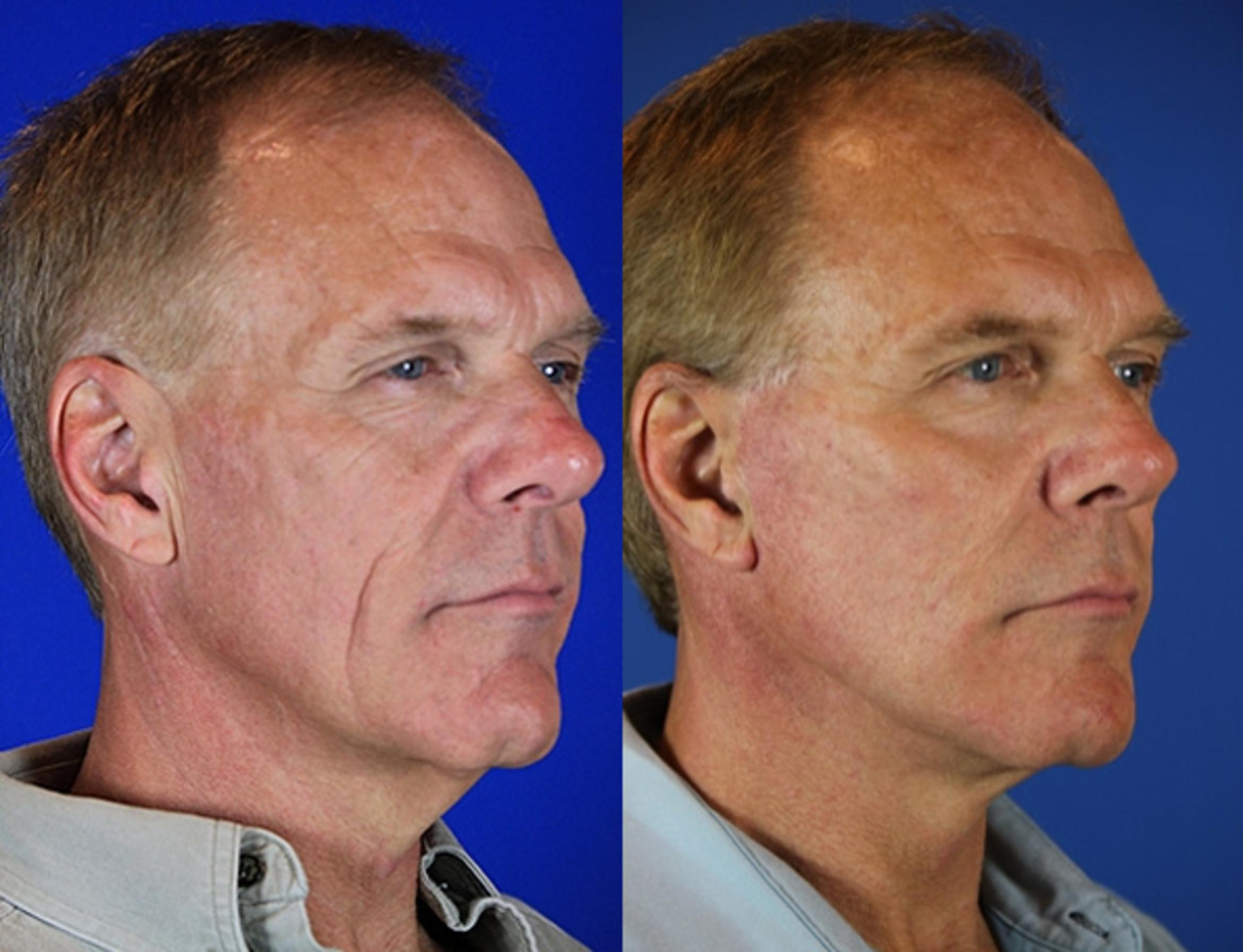 Facelift / Reflection Lift Case 72 Before & After Right Oblique | Nashville, TN | Youthful Reflections