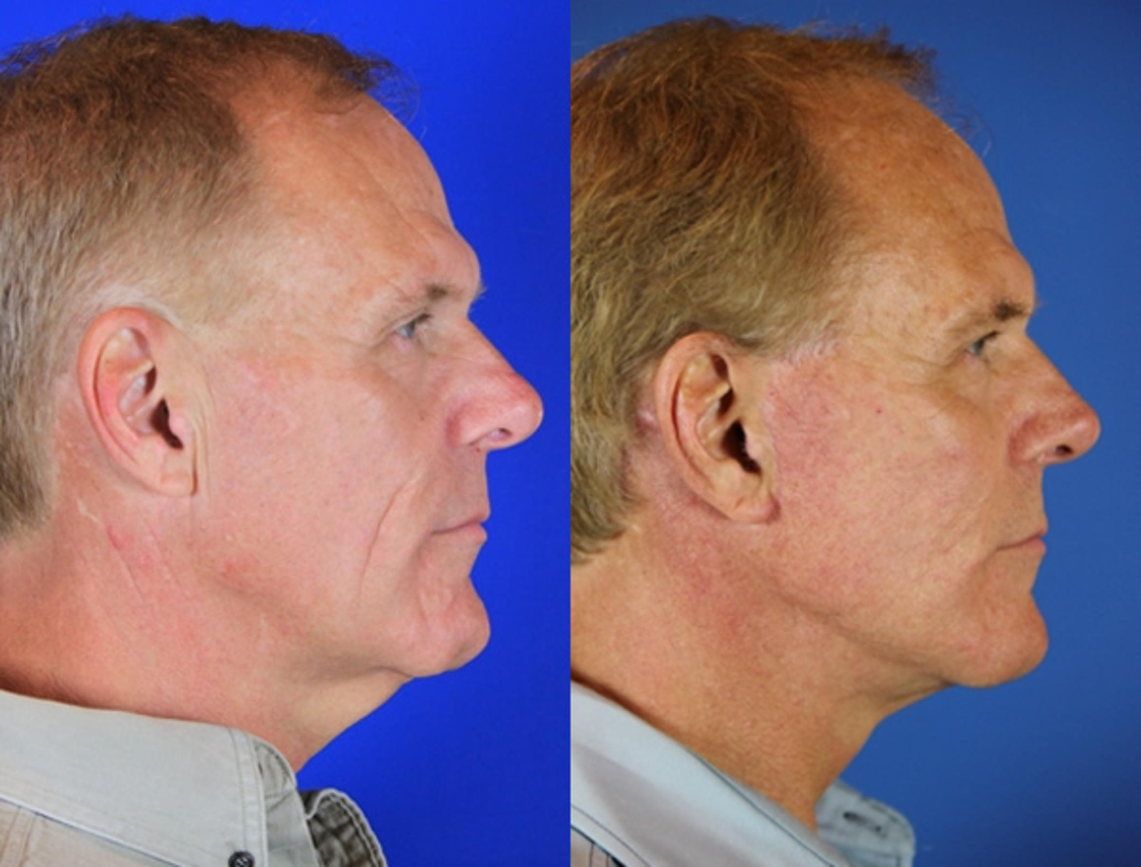 Facelift / Reflection Lift Case 72 Before & After Right Side | Nashville, TN | Youthful Reflections