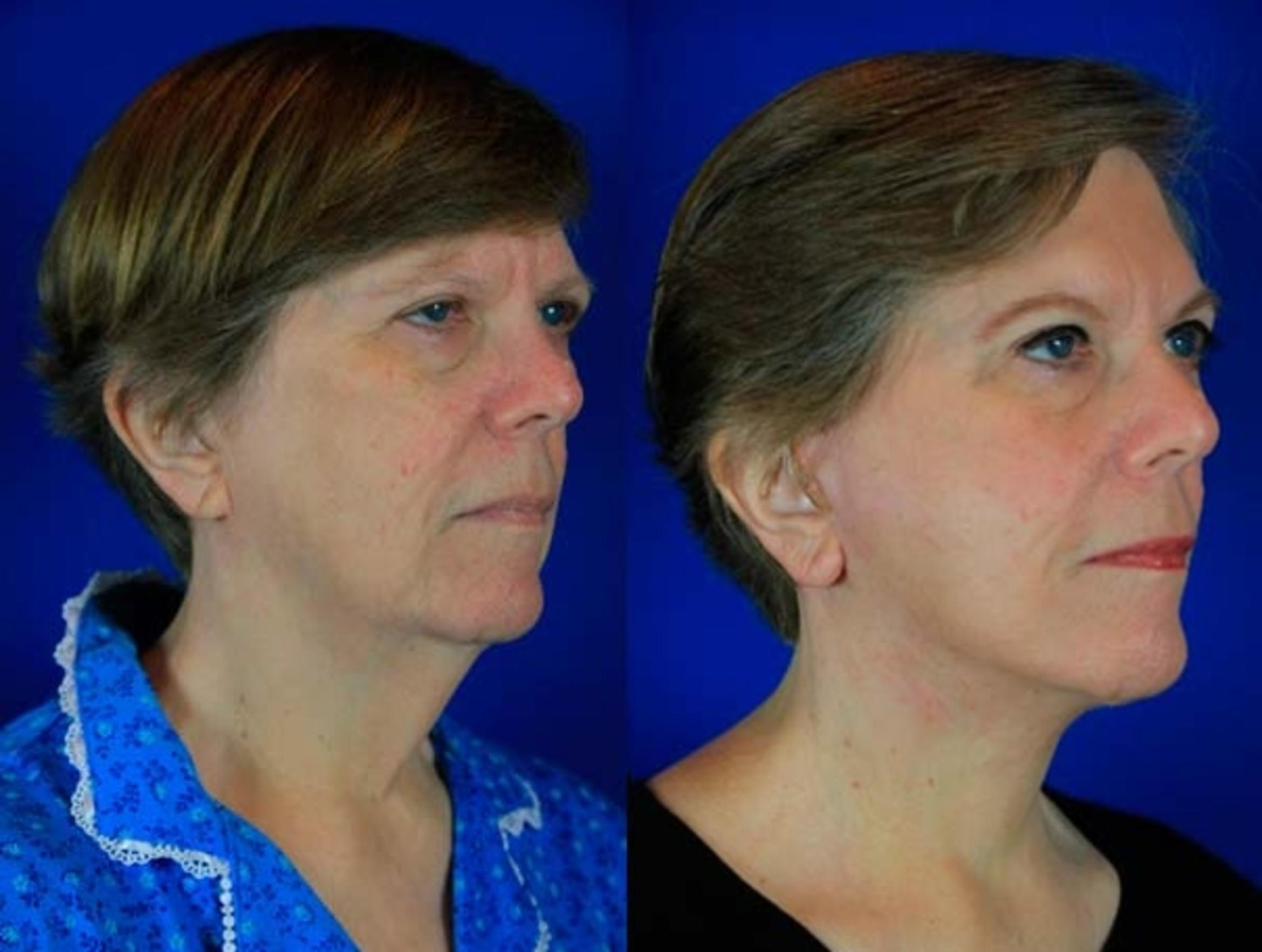 Facelift / Reflection Lift Case 73 Before & After Right Oblique | Brentwood, TN | Youthful Reflections