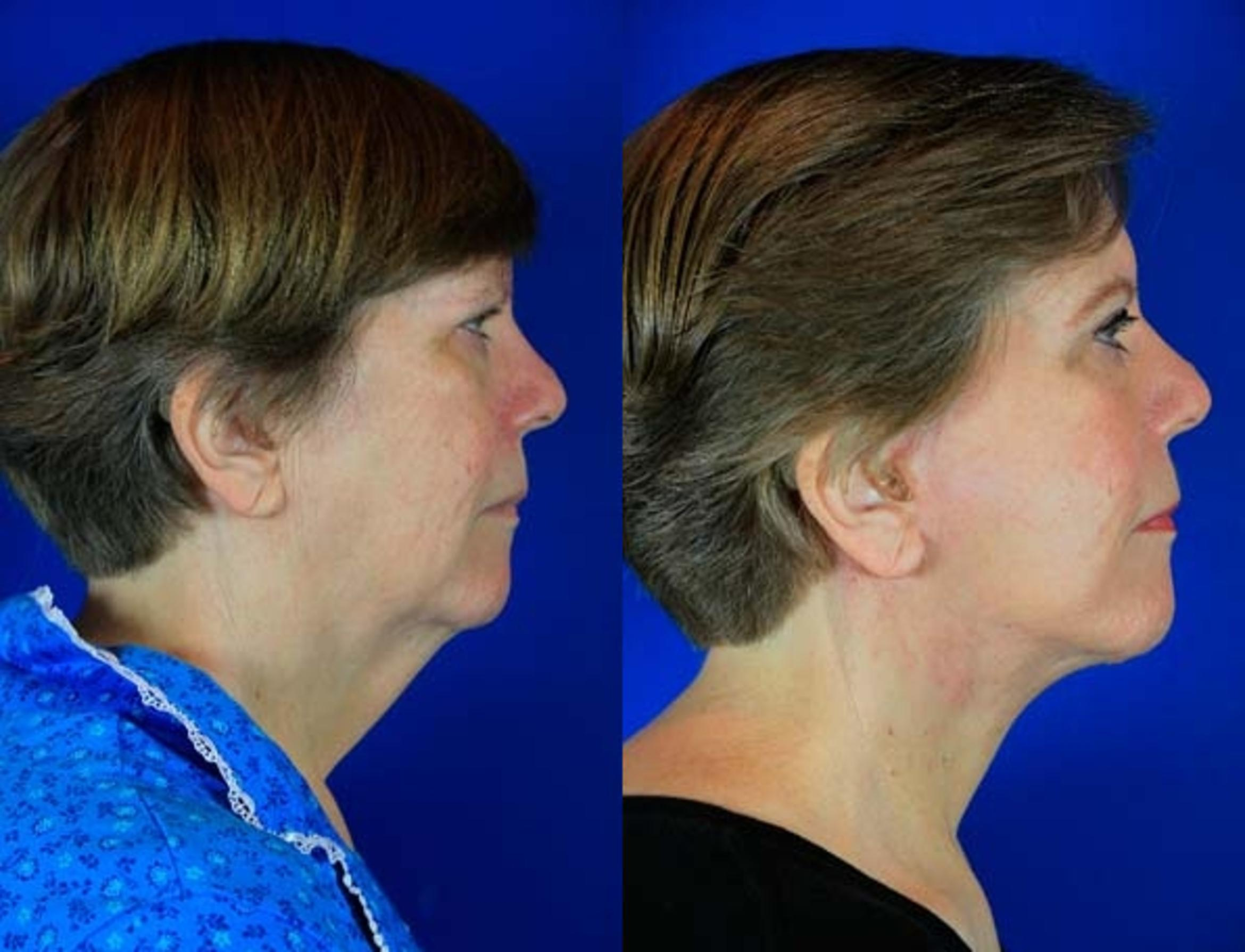 Facelift / Reflection Lift Case 73 Before & After Right Side | Brentwood, TN | Youthful Reflections
