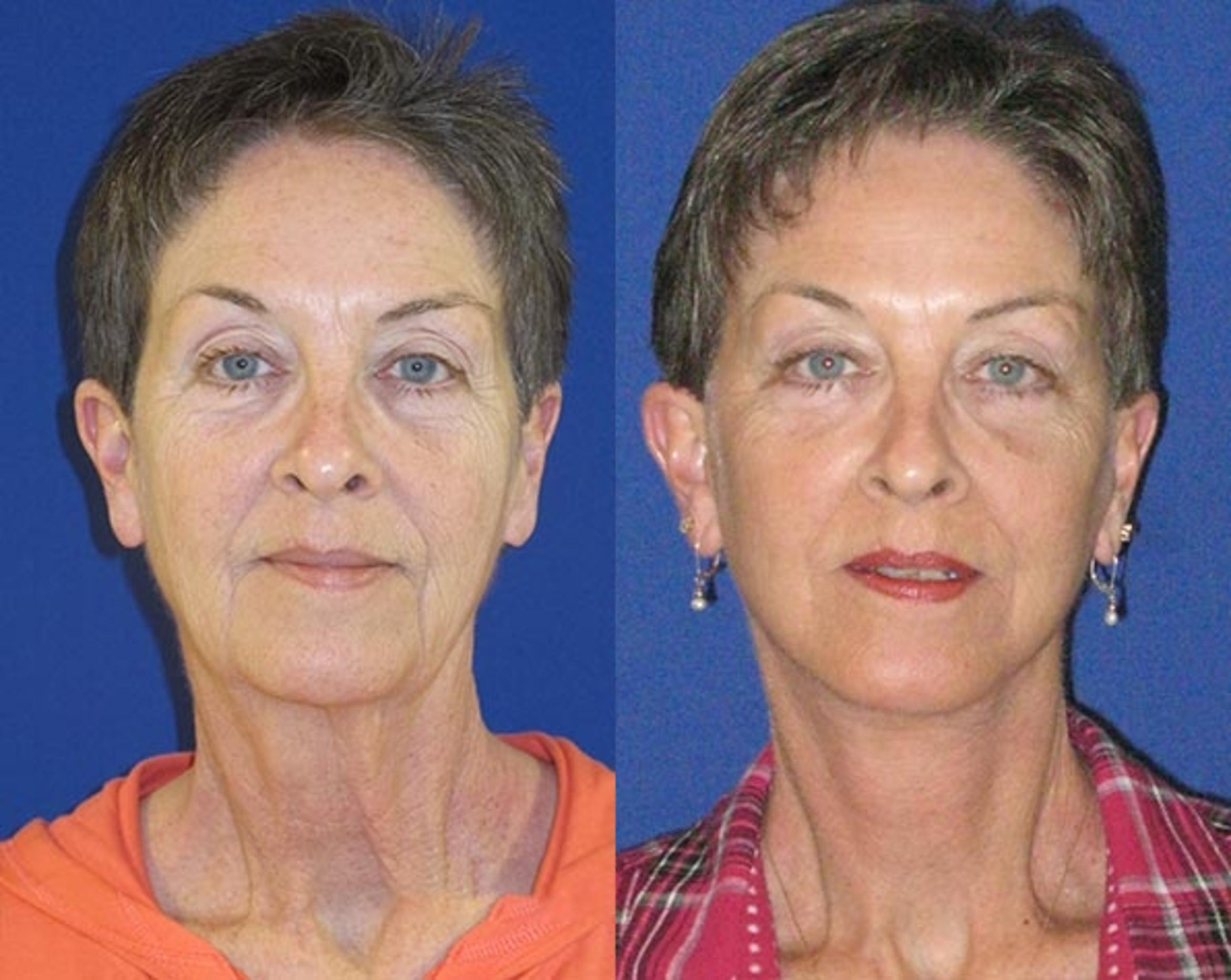 Facelift / Reflection Lift Case 74 Before & After Front | Nashville, TN | Youthful Reflections