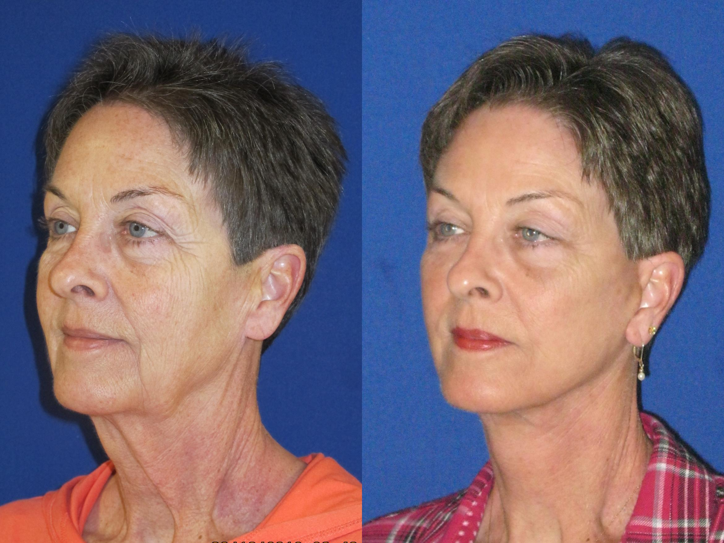 Facelift / Reflection Lift Case 74 Before & After Left Oblique | Nashville, TN | Youthful Reflections