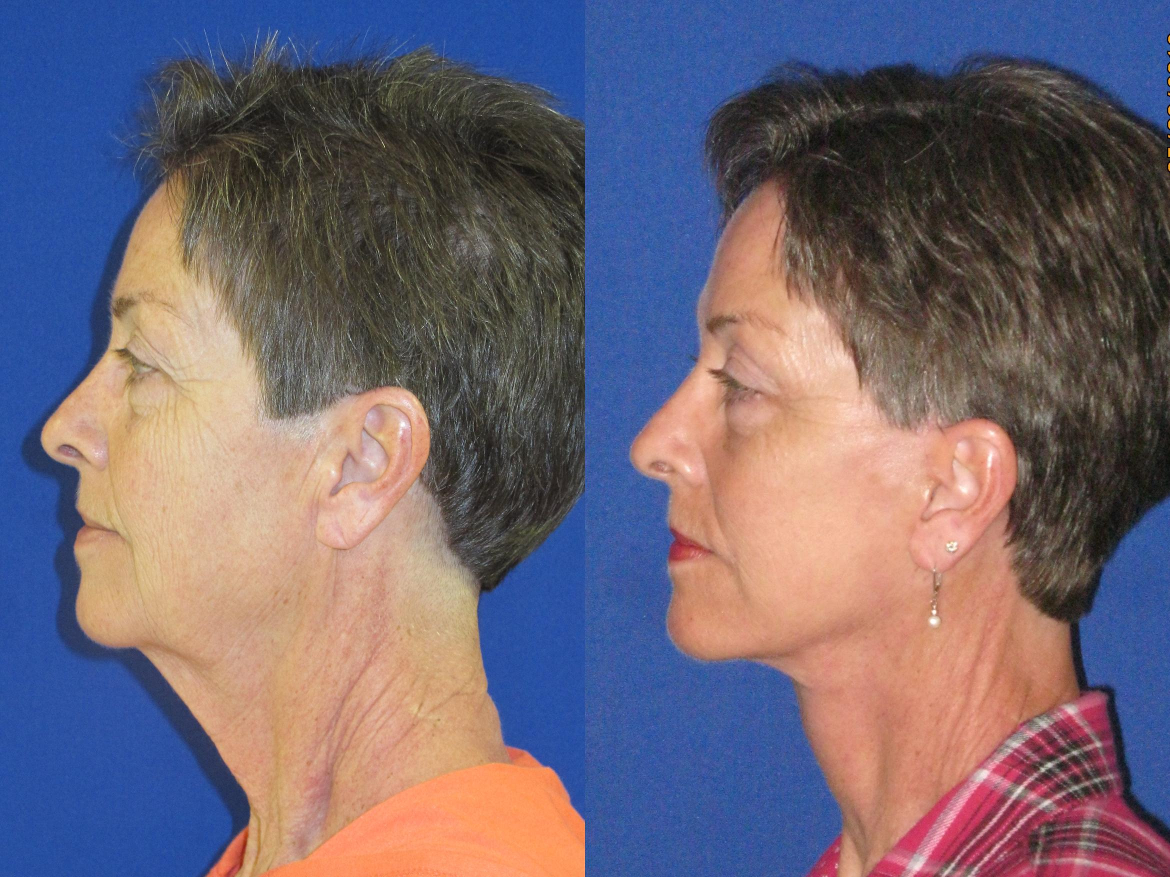 Facelift / Reflection Lift Case 74 Before & After Left Side | Nashville, TN | Youthful Reflections