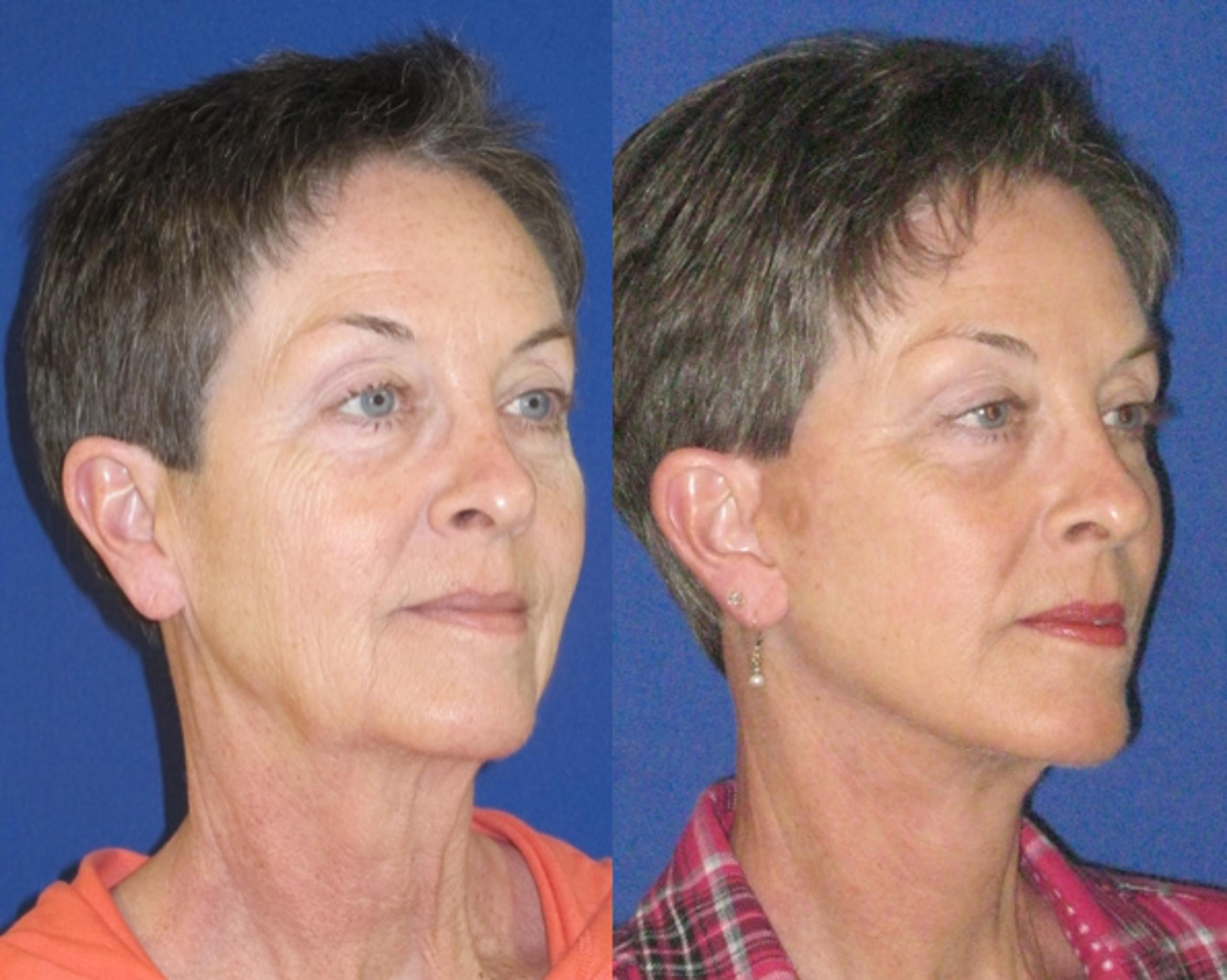 Facelift / Reflection Lift Case 74 Before & After Right Oblique | Nashville, TN | Youthful Reflections