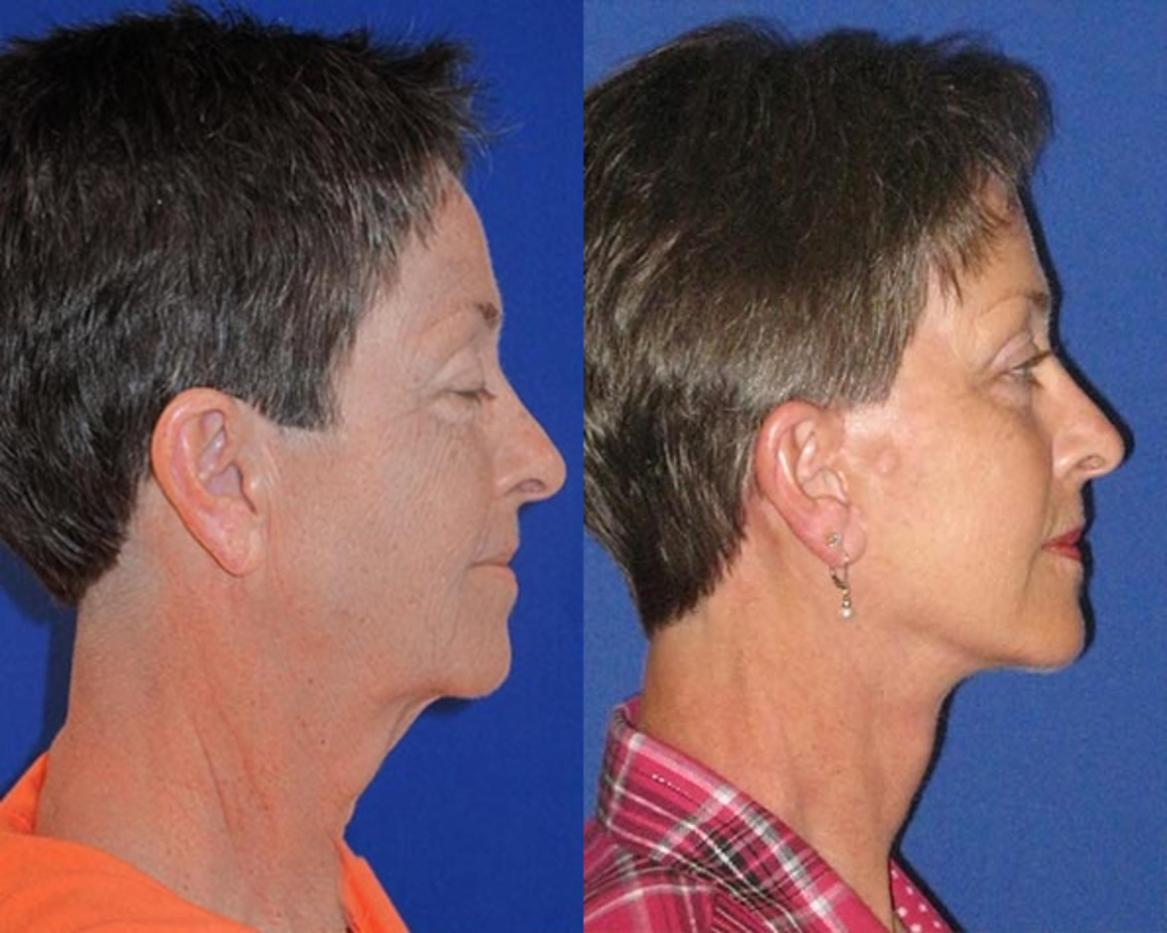 Facelift / Reflection Lift Case 74 Before & After Right Side | Nashville, TN | Youthful Reflections