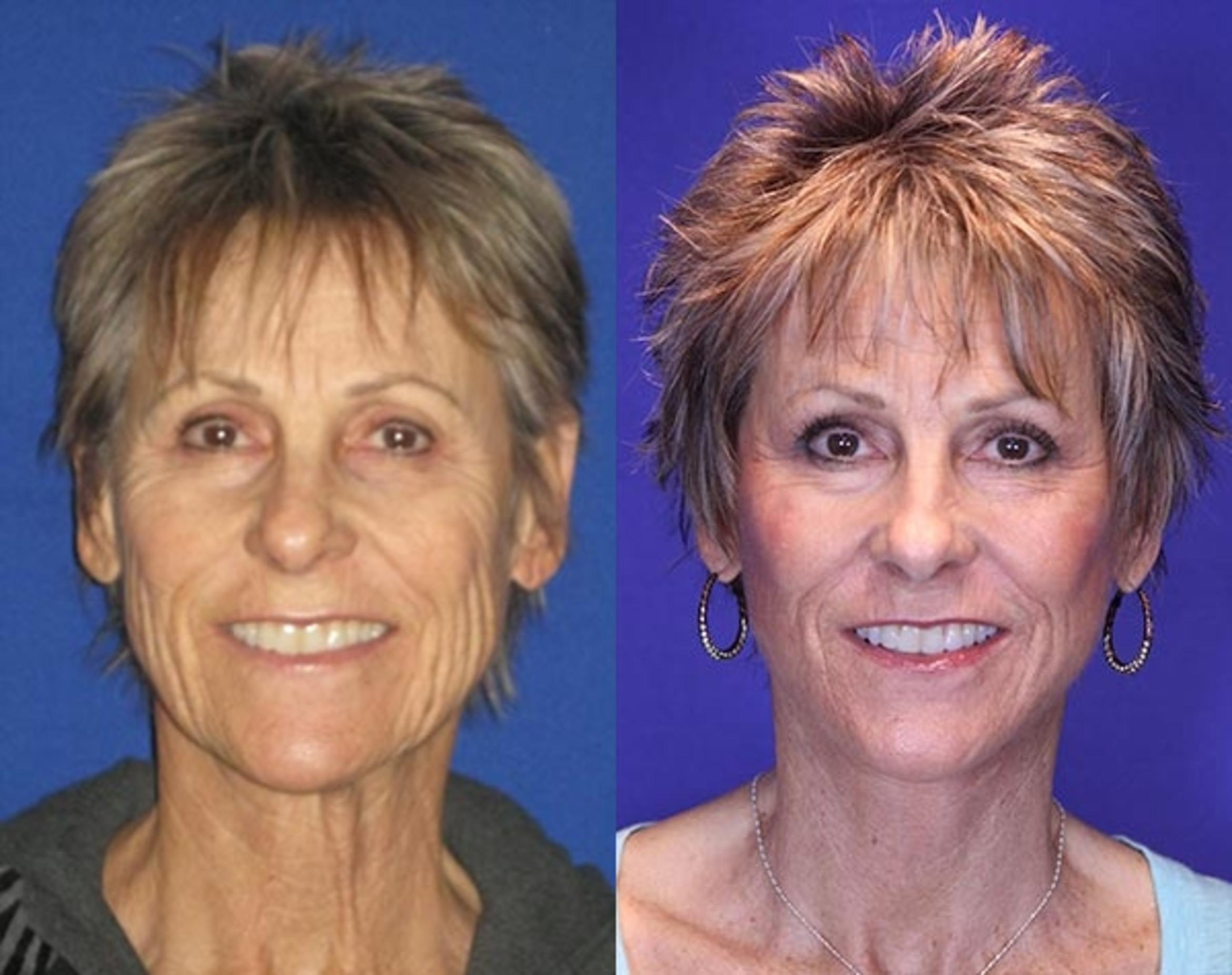 Facelift / Reflection Lift Case 76 Before & After Front | Brentwood, TN | Youthful Reflections