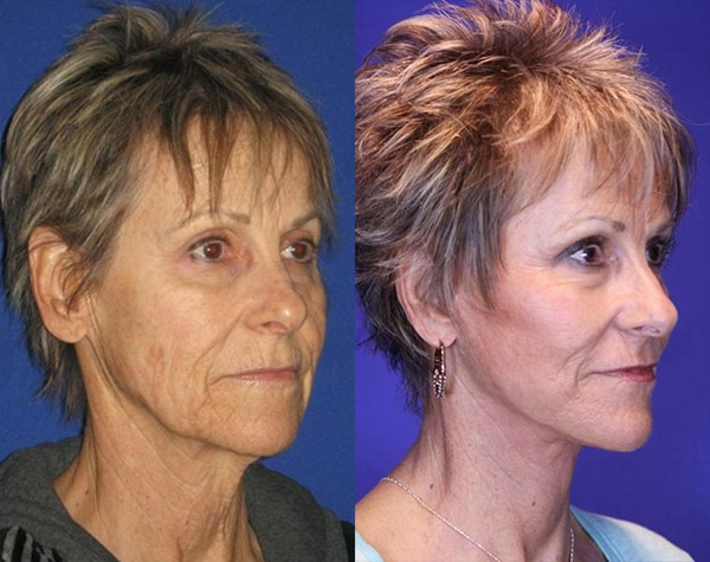 Facelift / Reflection Lift Case 76 Before & After Right Oblique | Brentwood, TN | Youthful Reflections
