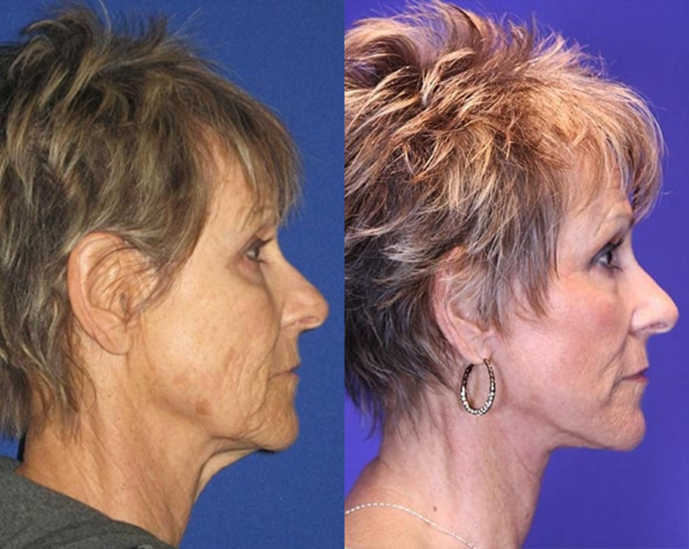 Facelift / Reflection Lift Case 76 Before & After Right Side | Brentwood, TN | Youthful Reflections