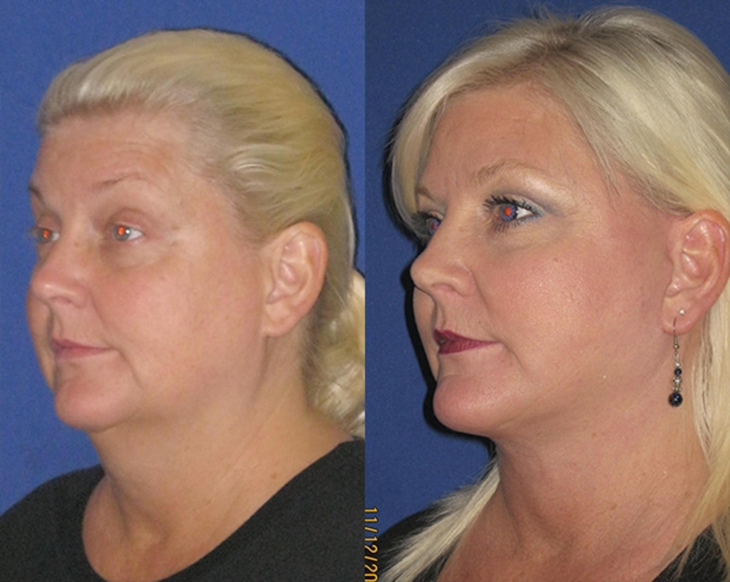 Facelift / Reflection Lift Case 78 Before & After Left Oblique | Brentwood, TN | Youthful Reflections