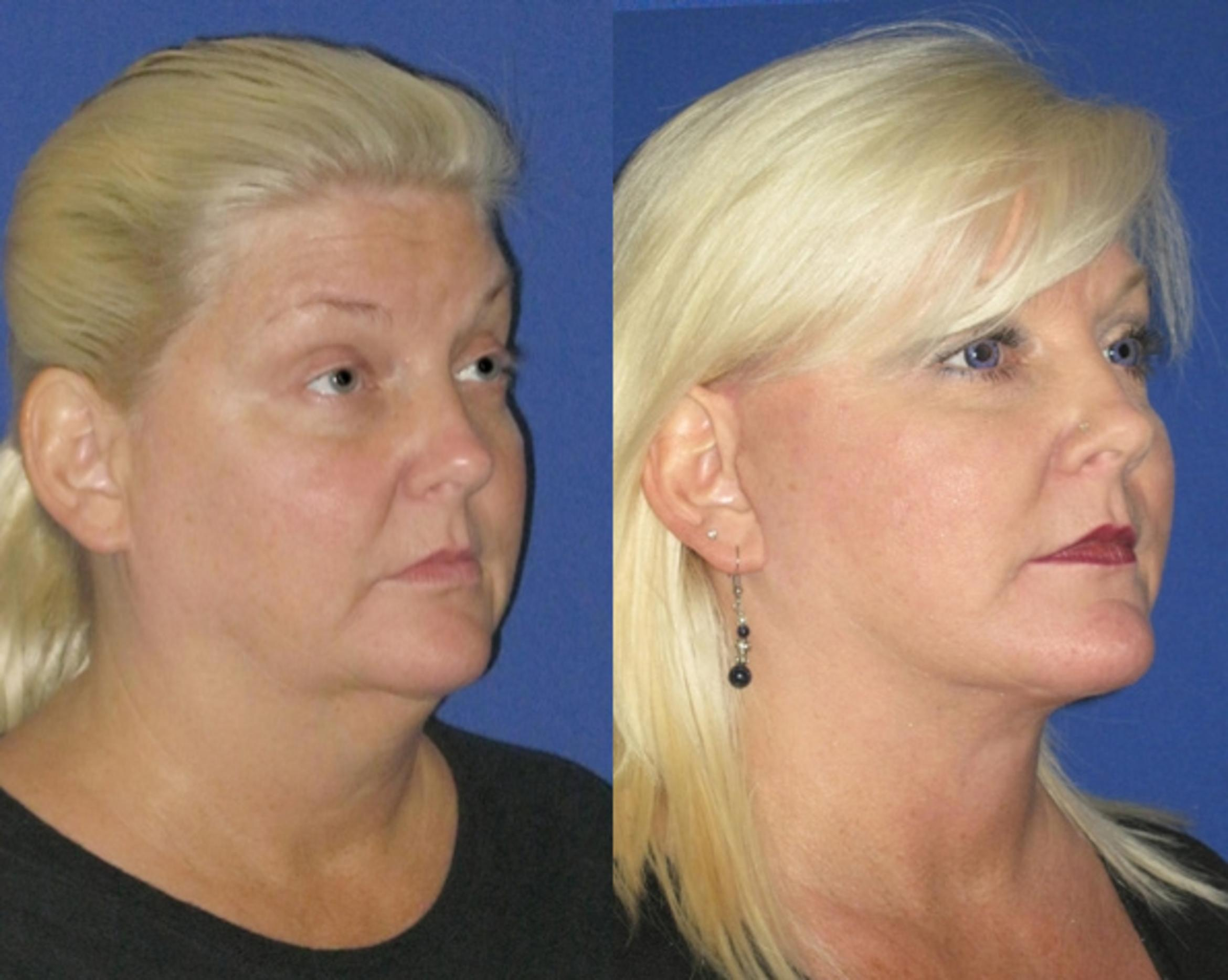 Facelift / Reflection Lift Case 78 Before & After Right Oblique | Brentwood, TN | Youthful Reflections