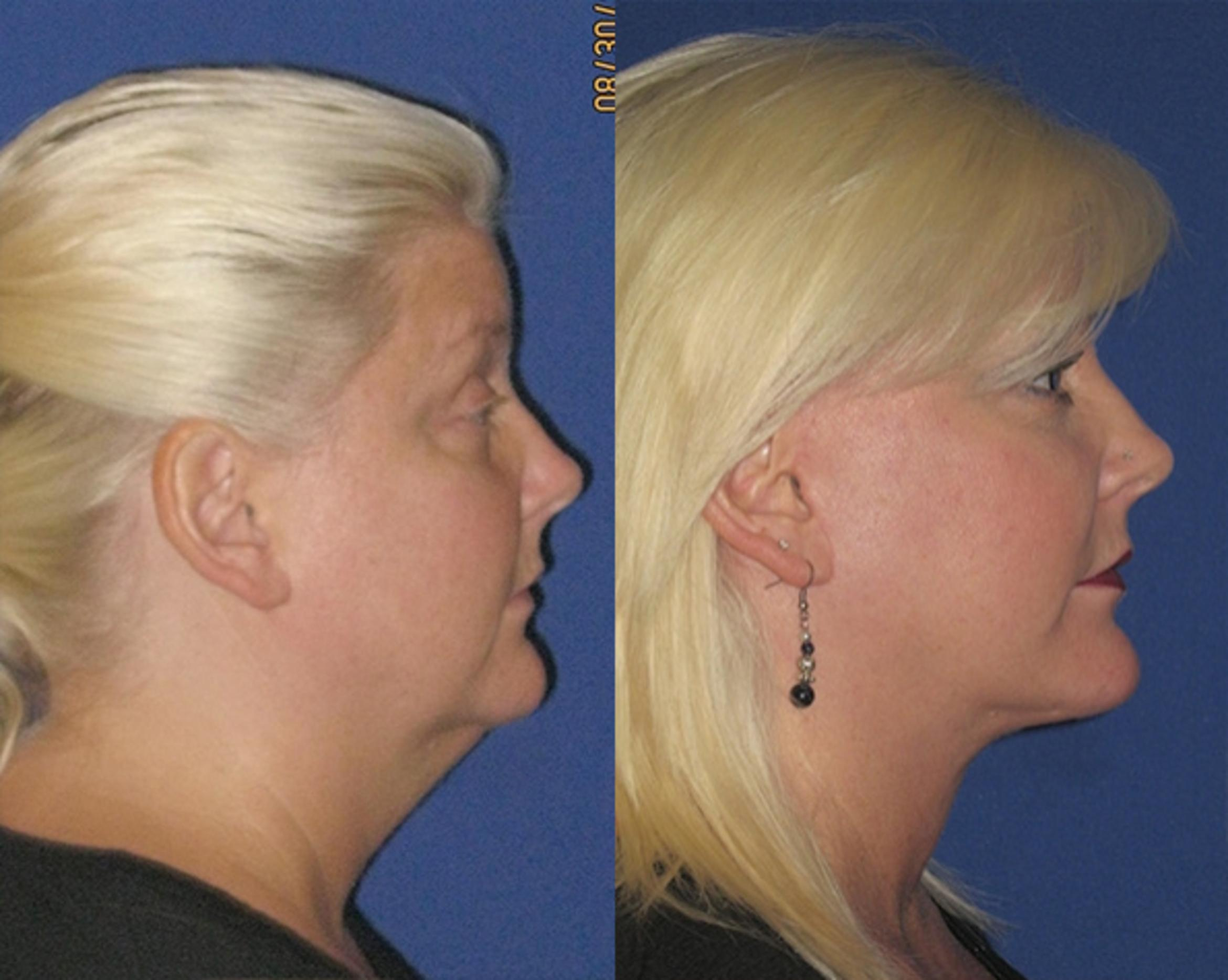 Facelift / Reflection Lift Case 78 Before & After Right Side | Brentwood, TN | Youthful Reflections