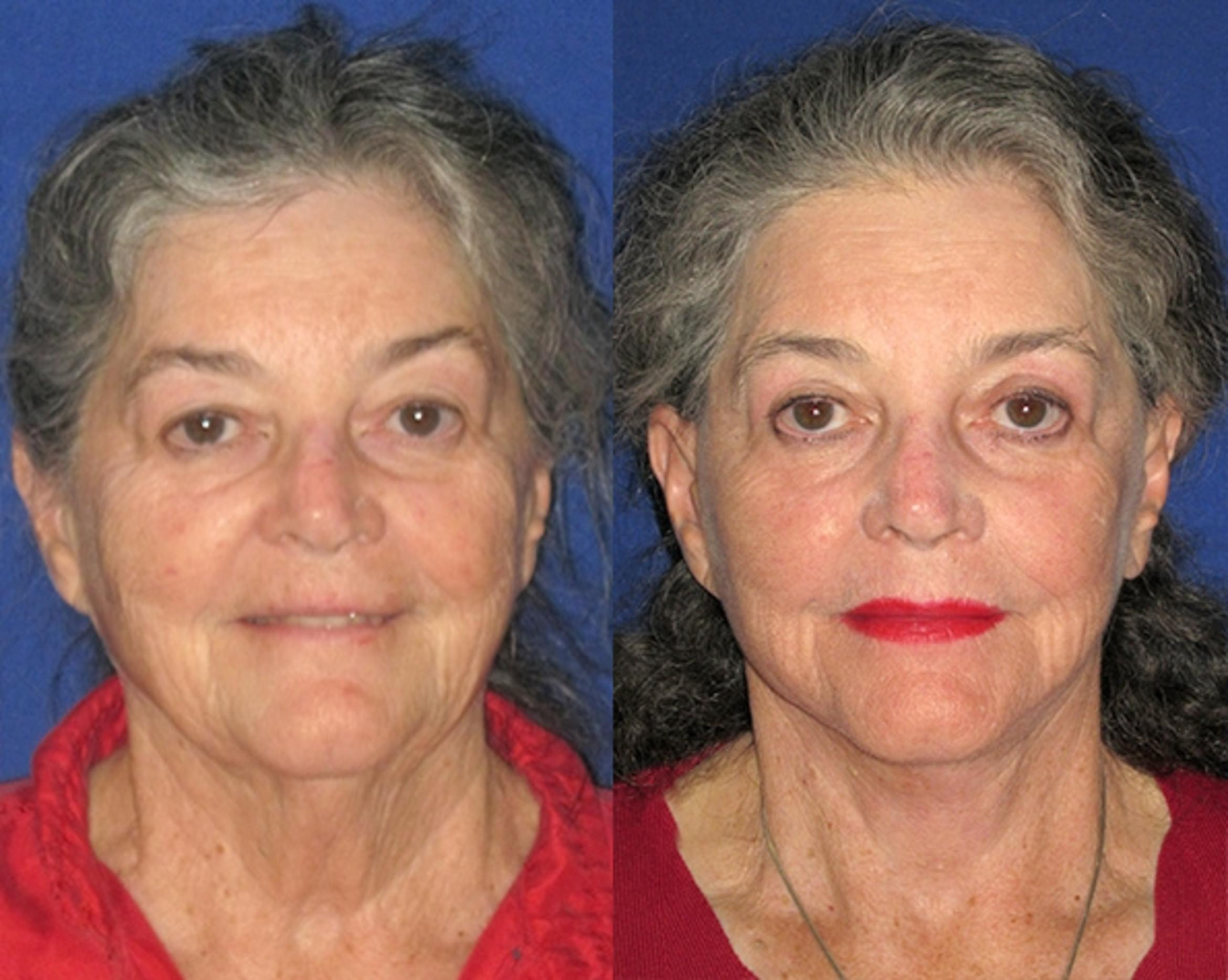 Facelift / Reflection Lift Case 79 Before & After Front | Brentwood, TN | Youthful Reflections