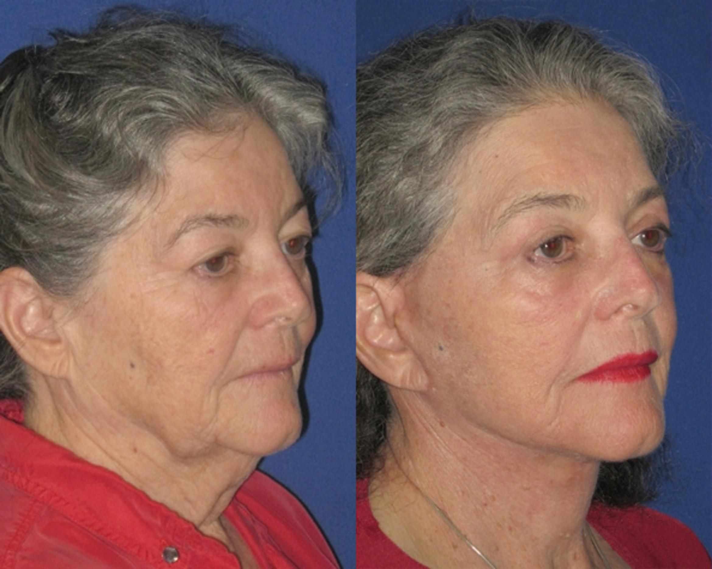Facelift / Reflection Lift Case 79 Before & After Right Oblique | Brentwood, TN | Youthful Reflections