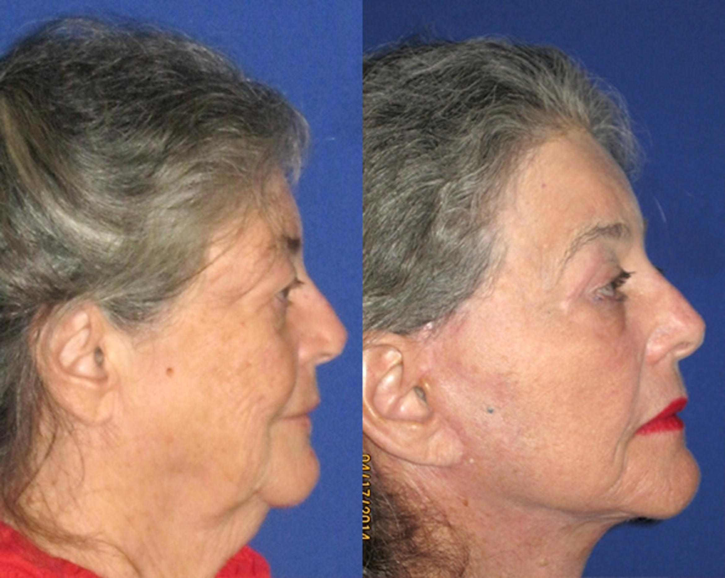 Facelift / Reflection Lift Case 79 Before & After Right Side | Brentwood, TN | Youthful Reflections