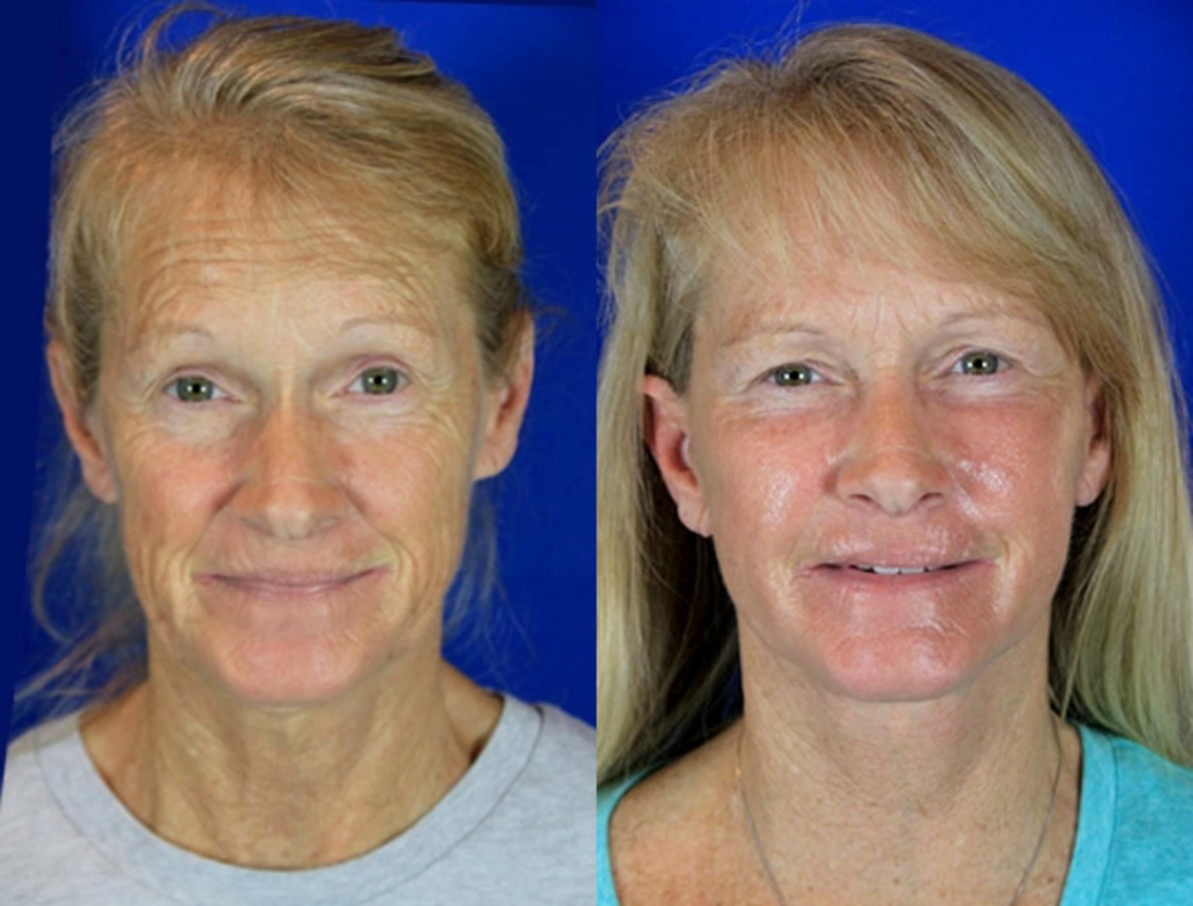 Facelift / Reflection Lift Case 82 Before & After Front | Brentwood, TN | Youthful Reflections
