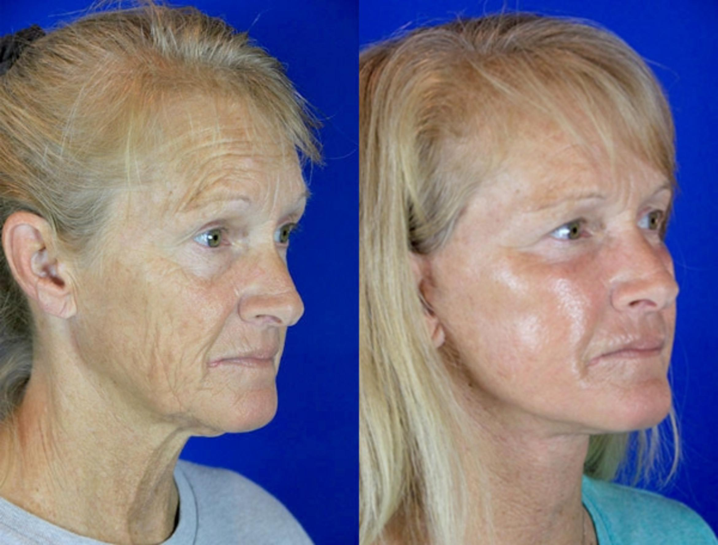 Facelift / Reflection Lift Case 82 Before & After Right Oblique | Brentwood, TN | Youthful Reflections