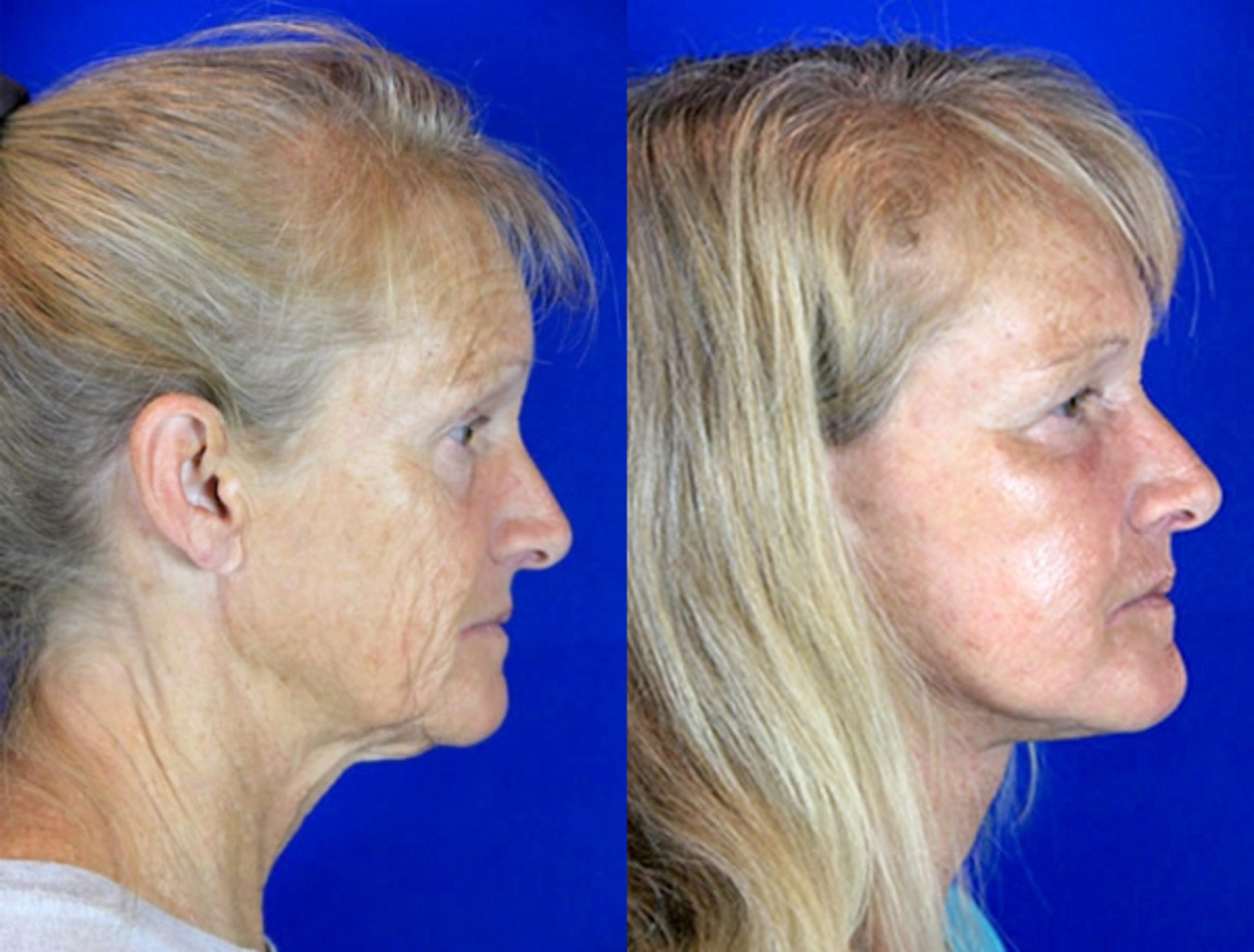 Facelift / Reflection Lift Case 82 Before & After Right Side | Brentwood, TN | Youthful Reflections
