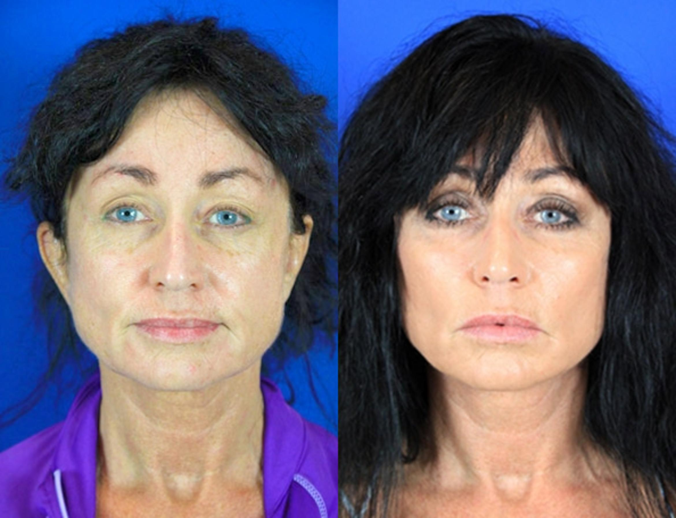 Facelift / Reflection Lift Case 83 Before & After Front | Brentwood, TN | Youthful Reflections