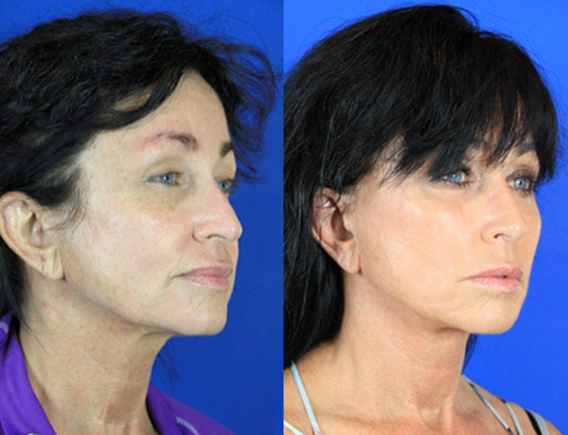 Facelift / Reflection Lift Case 83 Before & After Right Oblique | Brentwood, TN | Youthful Reflections