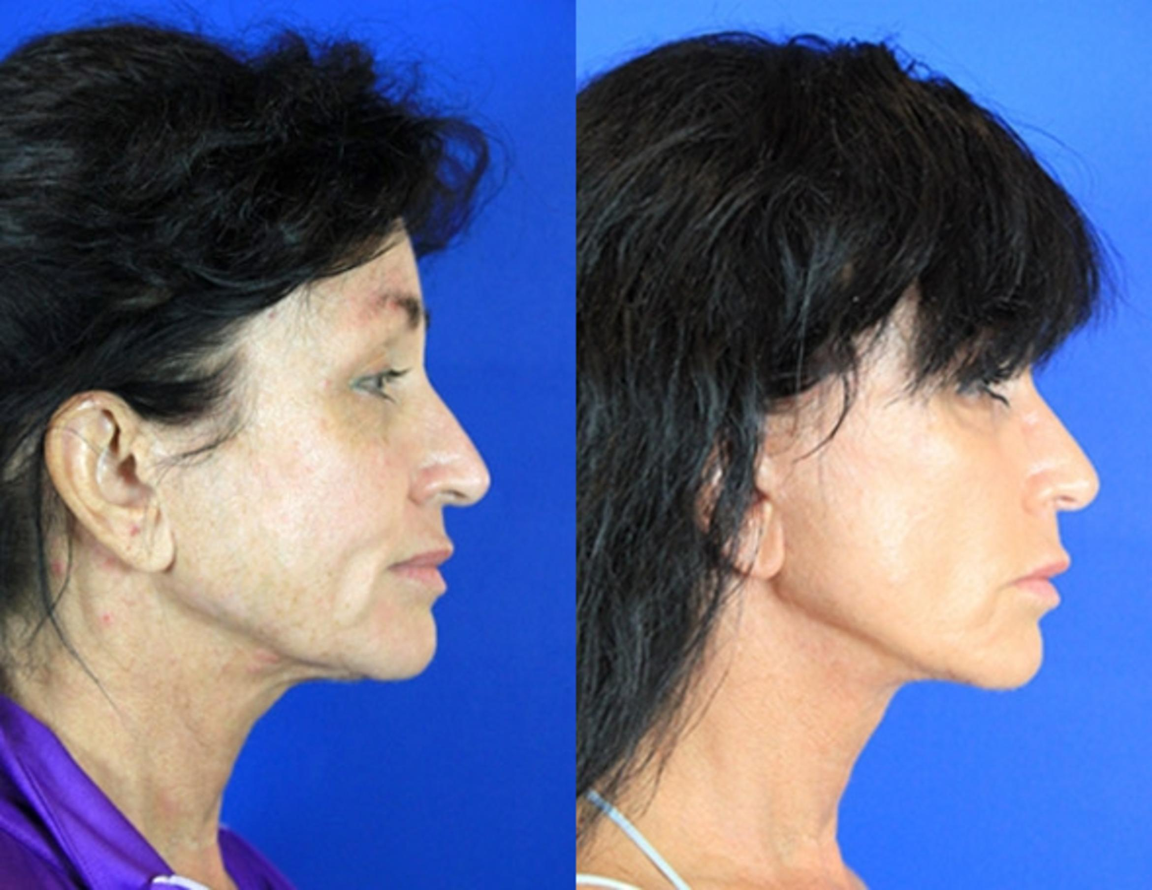 Facelift / Reflection Lift Case 83 Before & After Right Side | Brentwood, TN | Youthful Reflections
