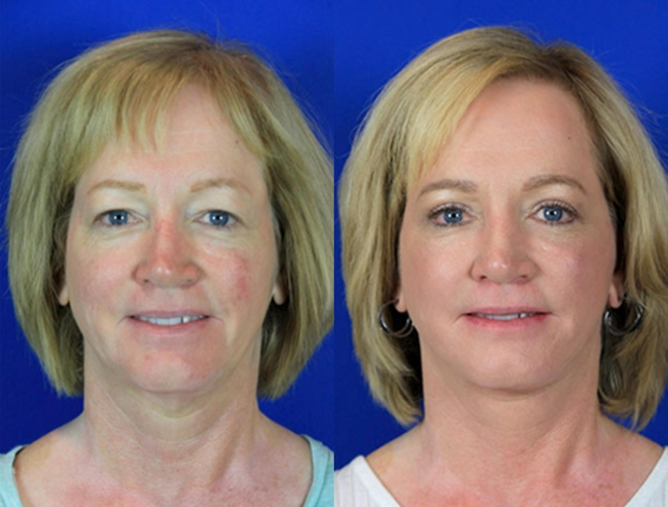 Upper Blepharoplasty Case 84 Before & After Front | Nashville, TN | Youthful Reflections