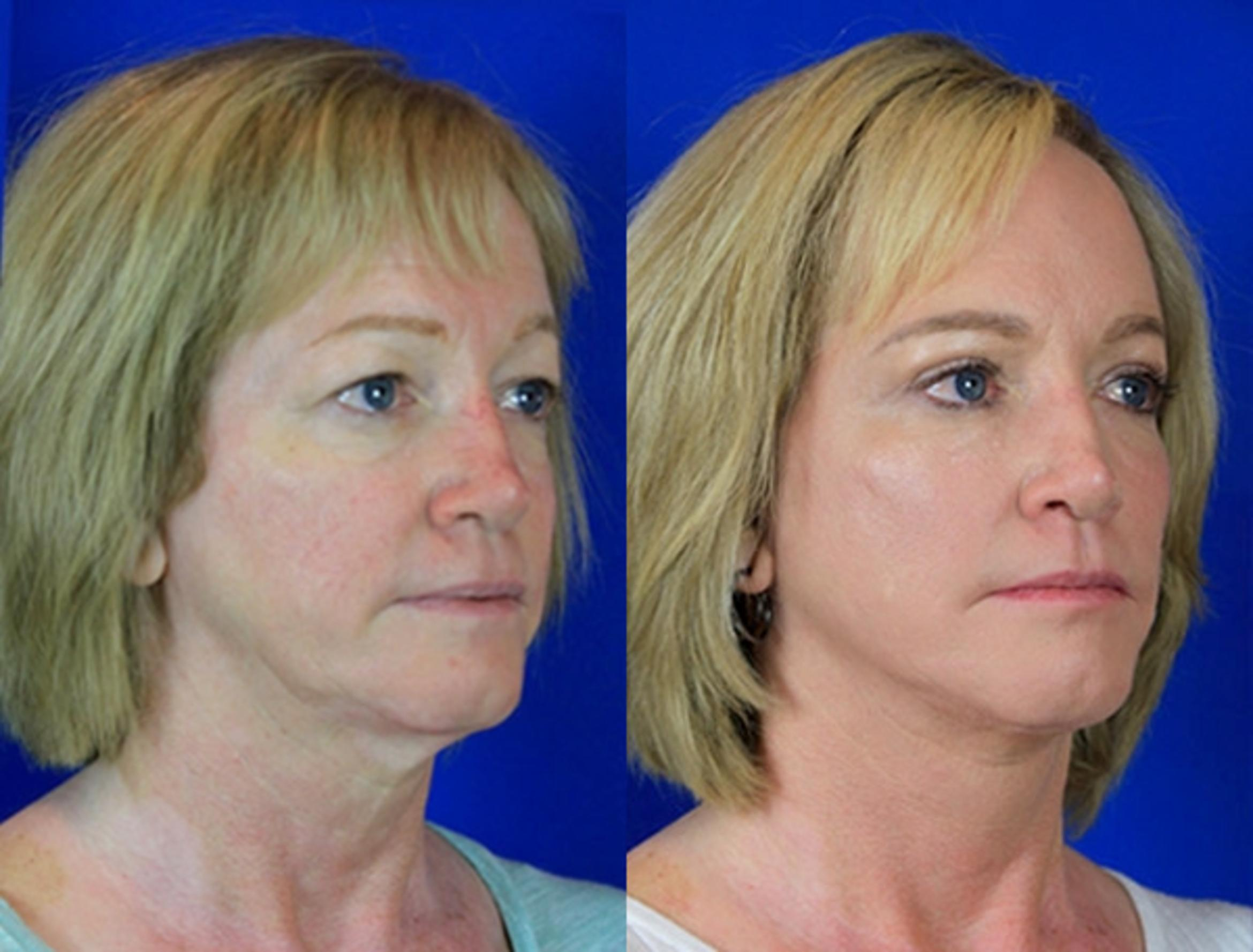 Facelift / Reflection Lift Case 84 Before & After Right Oblique | Brentwood, TN | Youthful Reflections