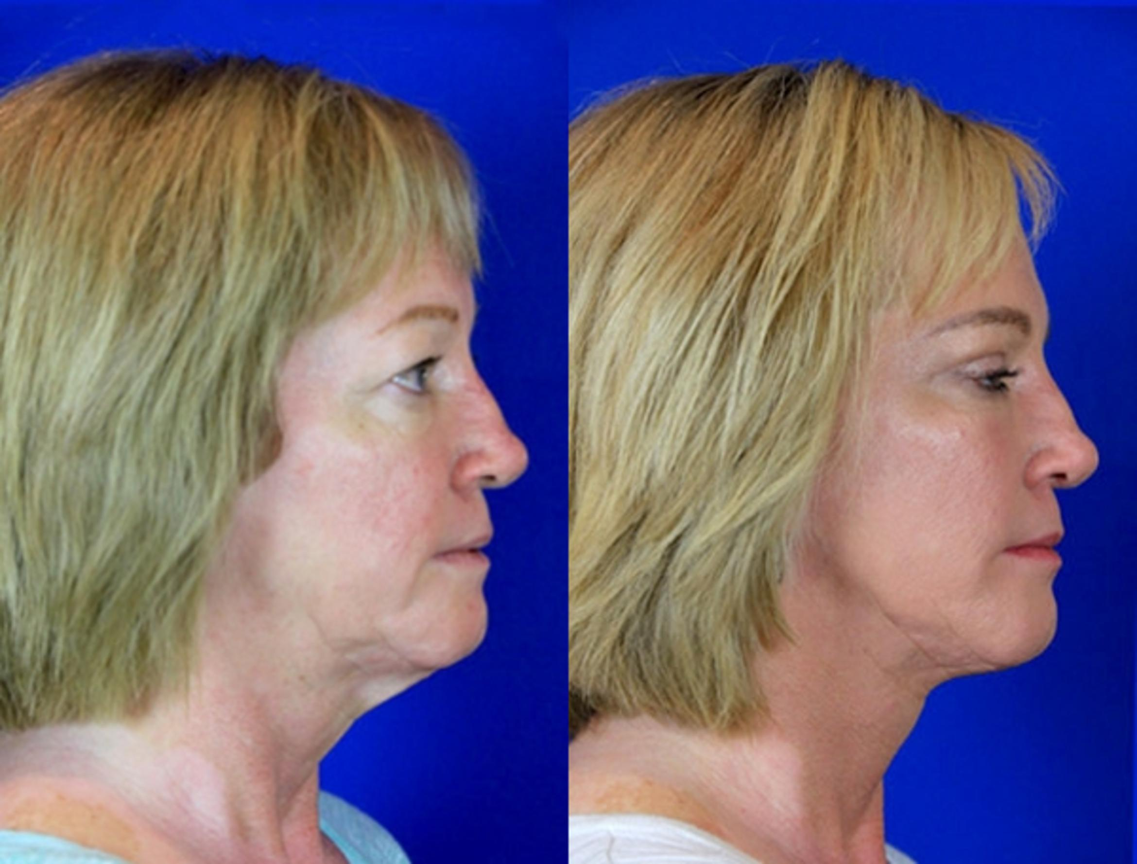 Upper Blepharoplasty Case 84 Before & After Right Side | Nashville, TN | Youthful Reflections