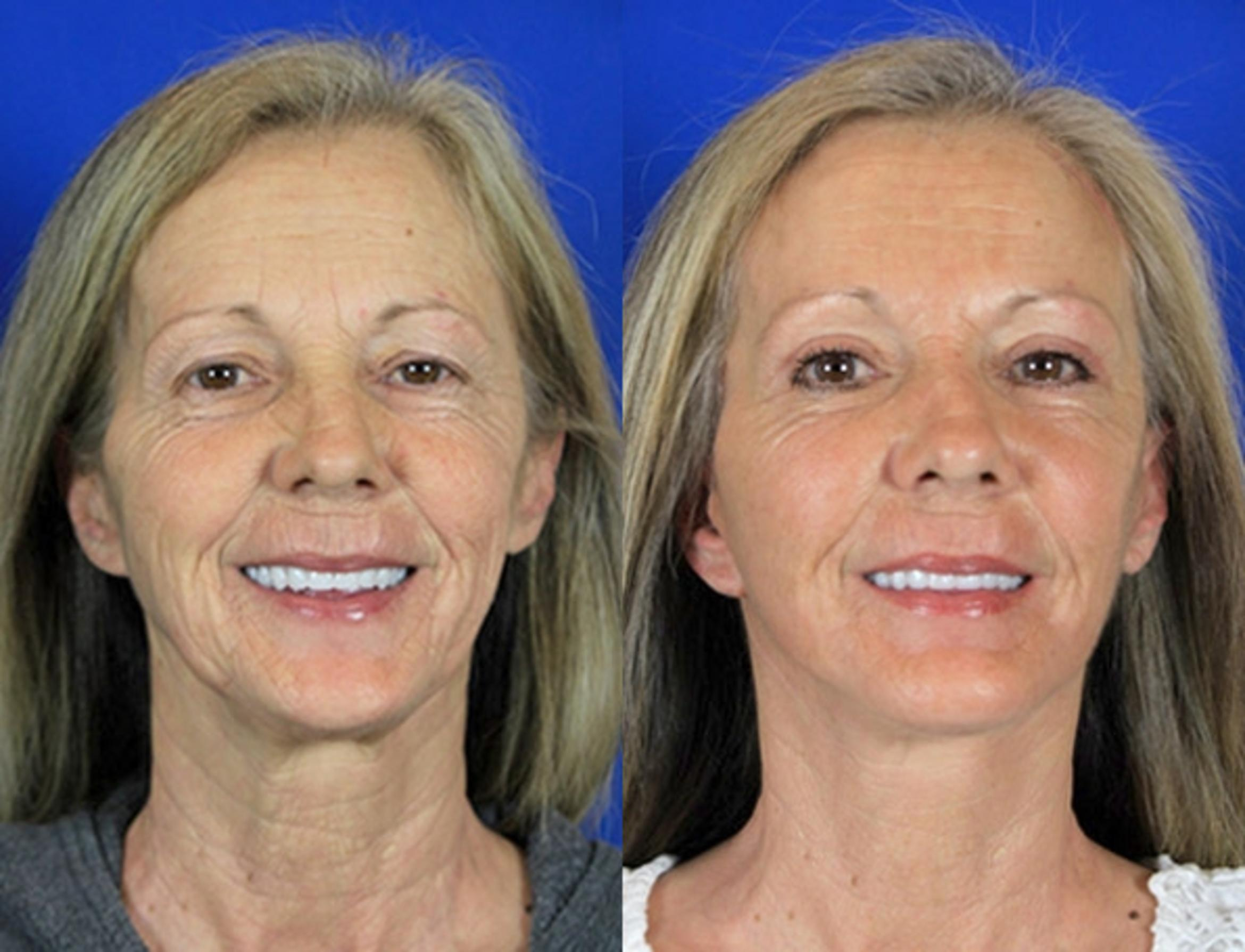 Facelift / Reflection Lift Case 85 Before & After Front | Brentwood, TN | Youthful Reflections