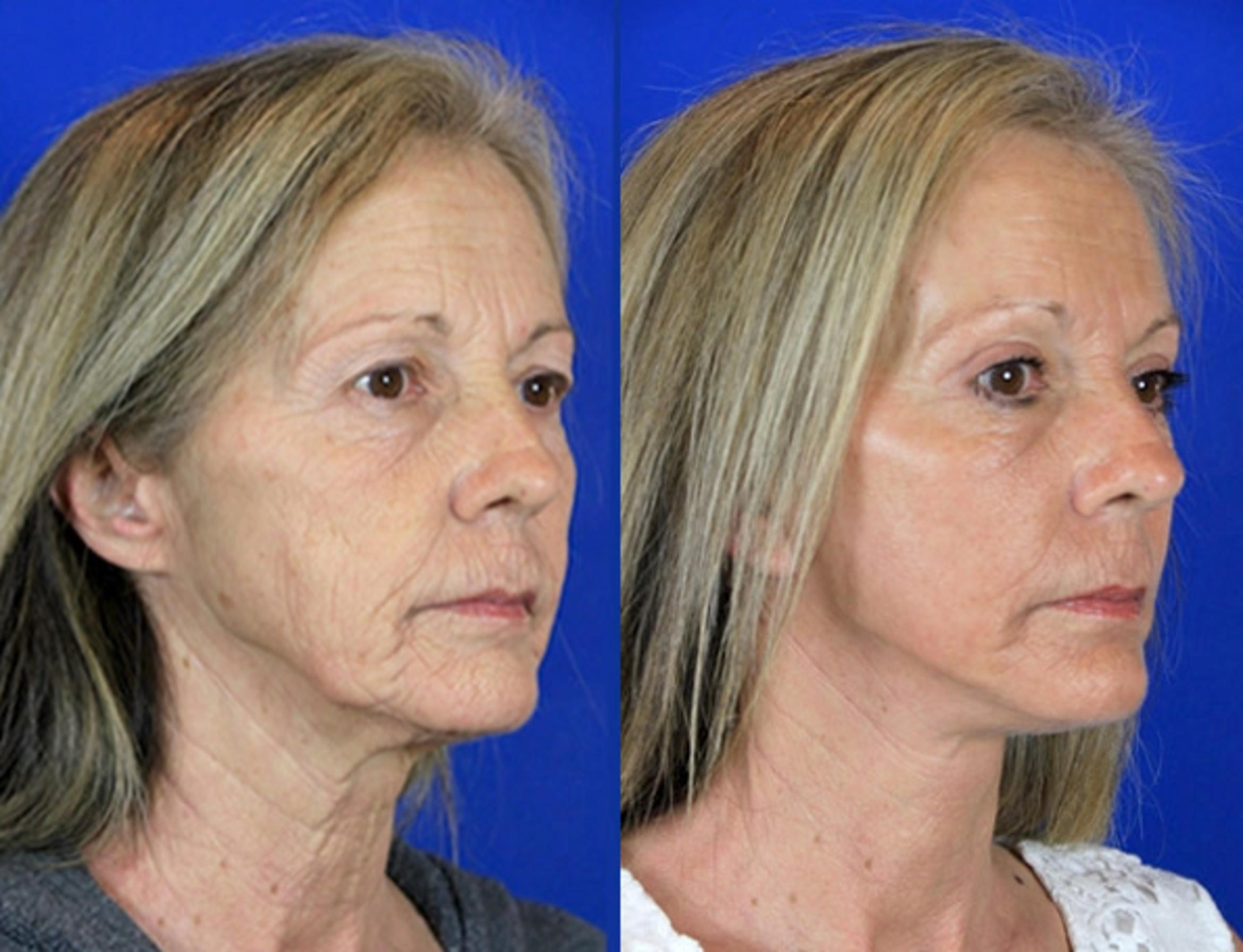Facelift / Reflection Lift Case 85 Before & After Right Oblique | Brentwood, TN | Youthful Reflections