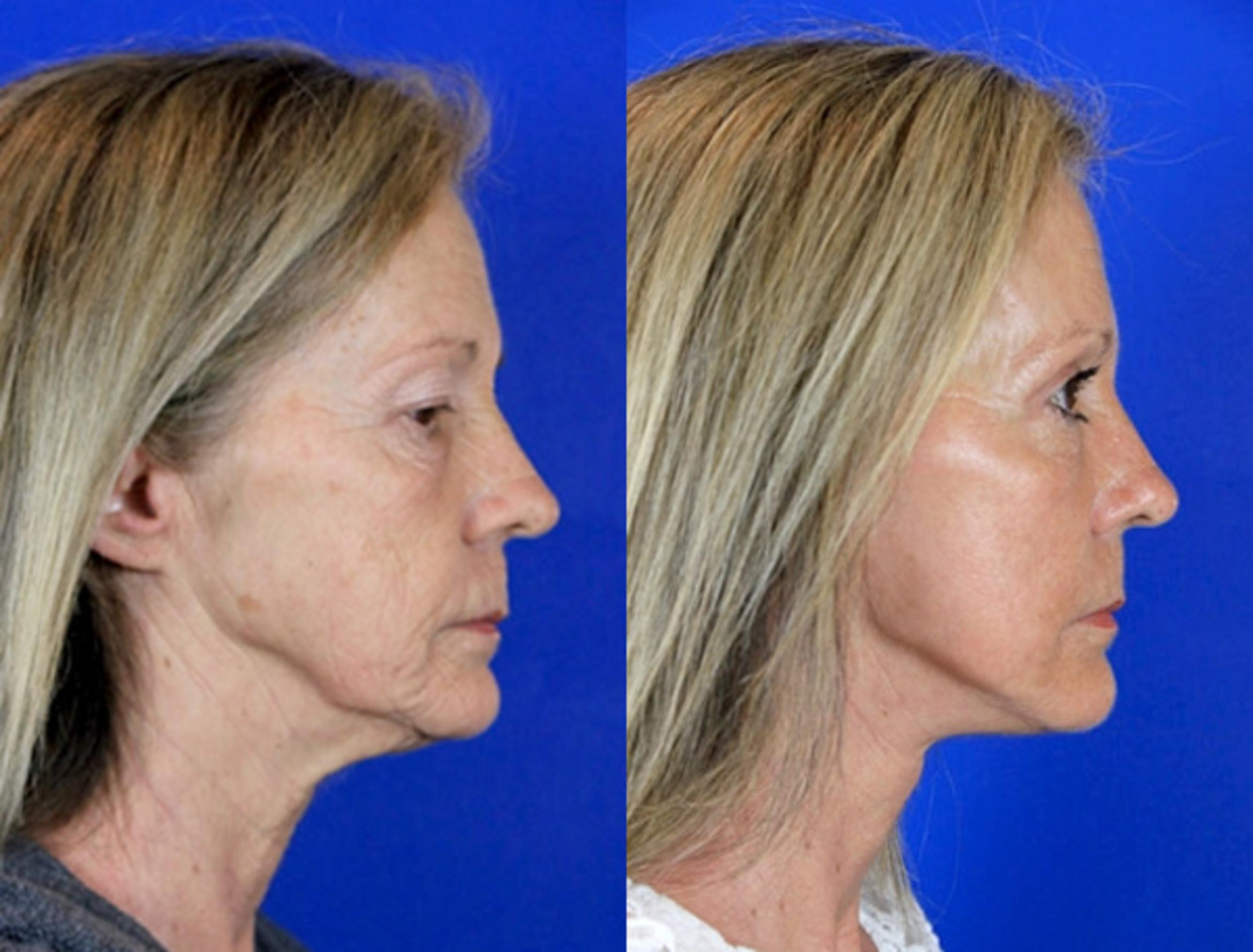 Facelift / Reflection Lift Case 85 Before & After Right Side | Brentwood, TN | Youthful Reflections