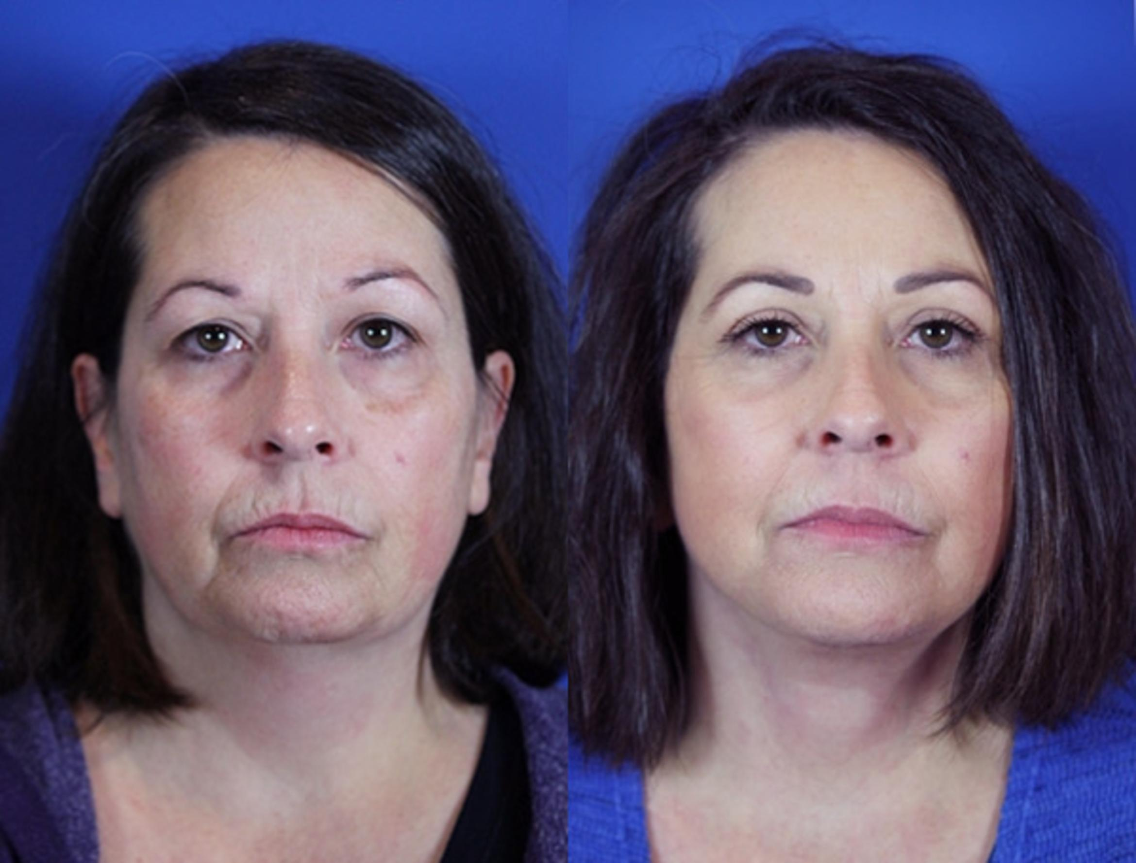 Facelift / Reflection Lift Case 86 Before & After Front | Brentwood, TN | Youthful Reflections