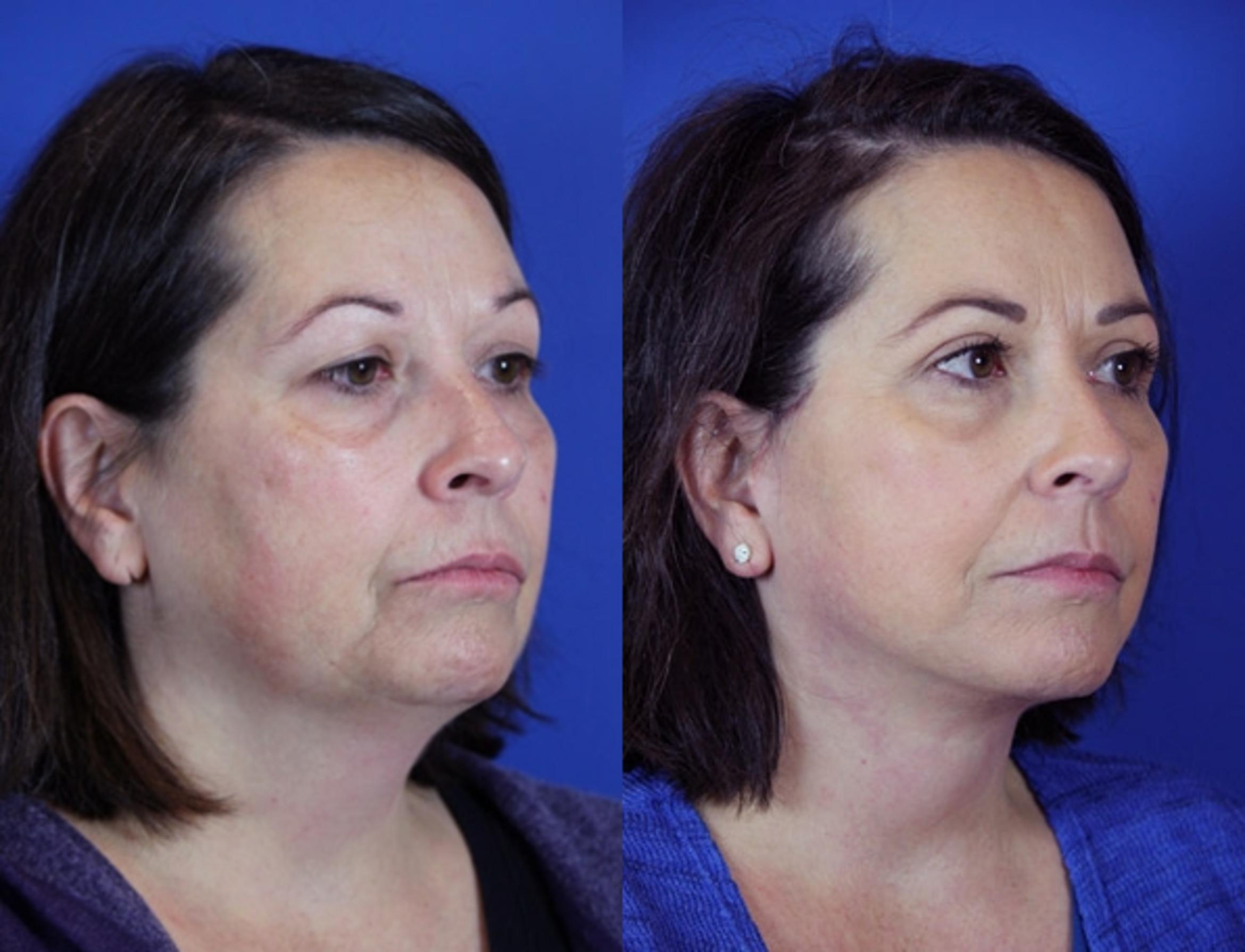 Facelift / Reflection Lift Case 86 Before & After Right Oblique | Brentwood, TN | Youthful Reflections