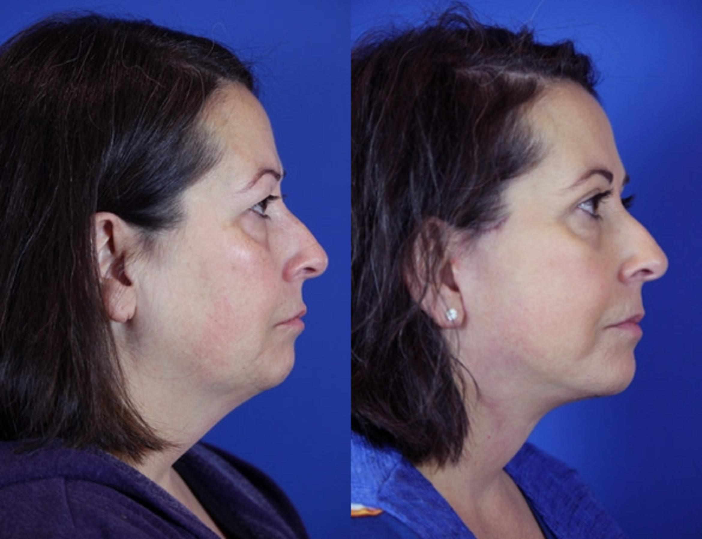 Facelift / Reflection Lift Case 86 Before & After Right Side | Brentwood, TN | Youthful Reflections