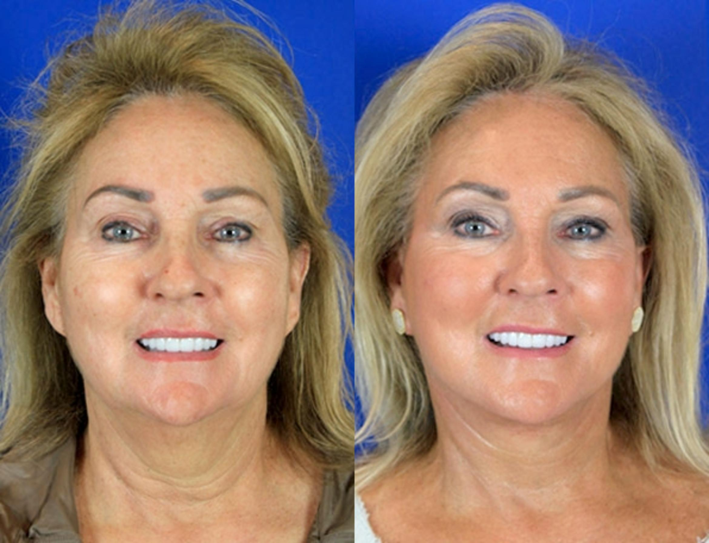 Facelift / Reflection Lift Case 88 Before & After Front | Brentwood, TN | Youthful Reflections