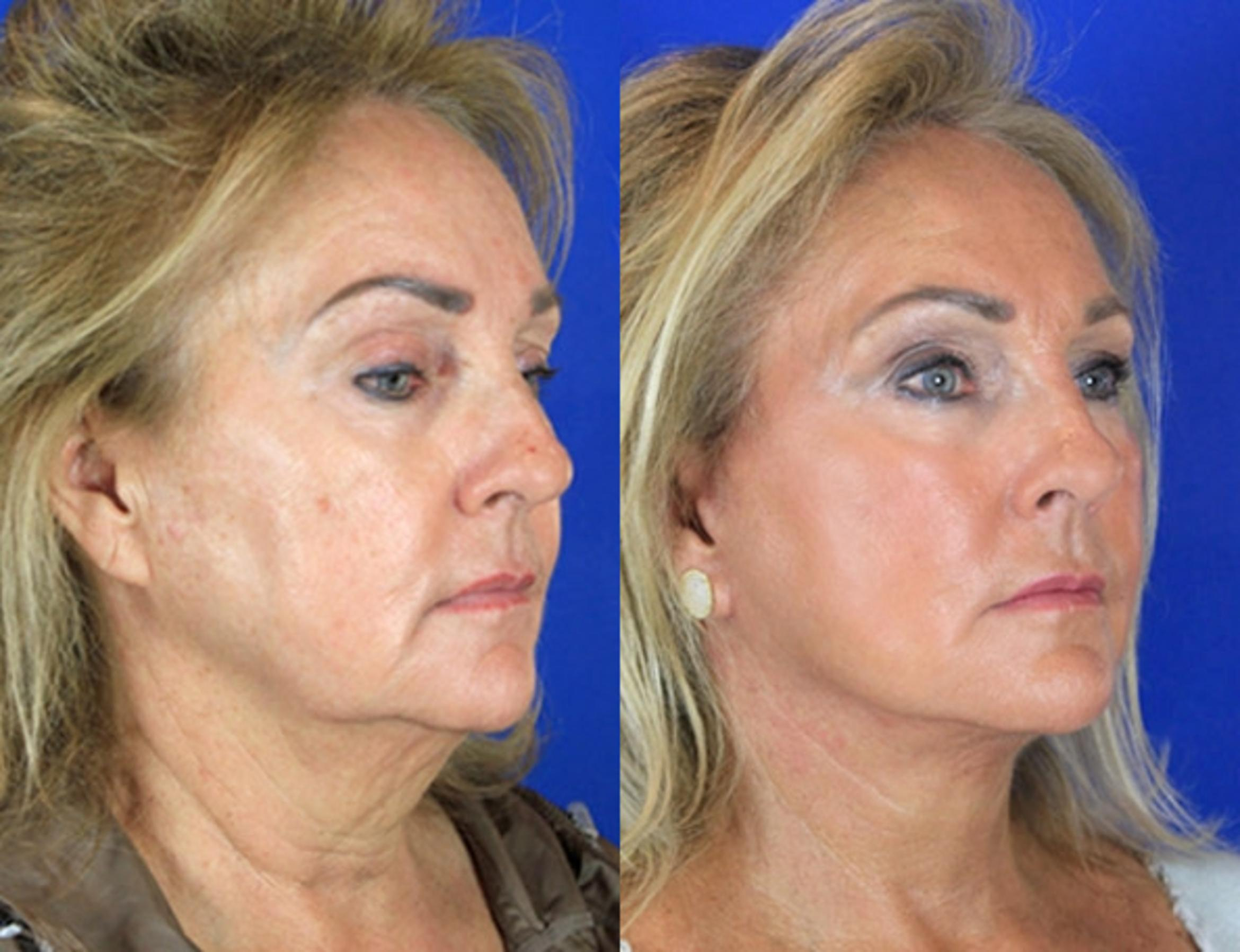 Facelift / Reflection Lift Case 88 Before & After Right Oblique | Brentwood, TN | Youthful Reflections